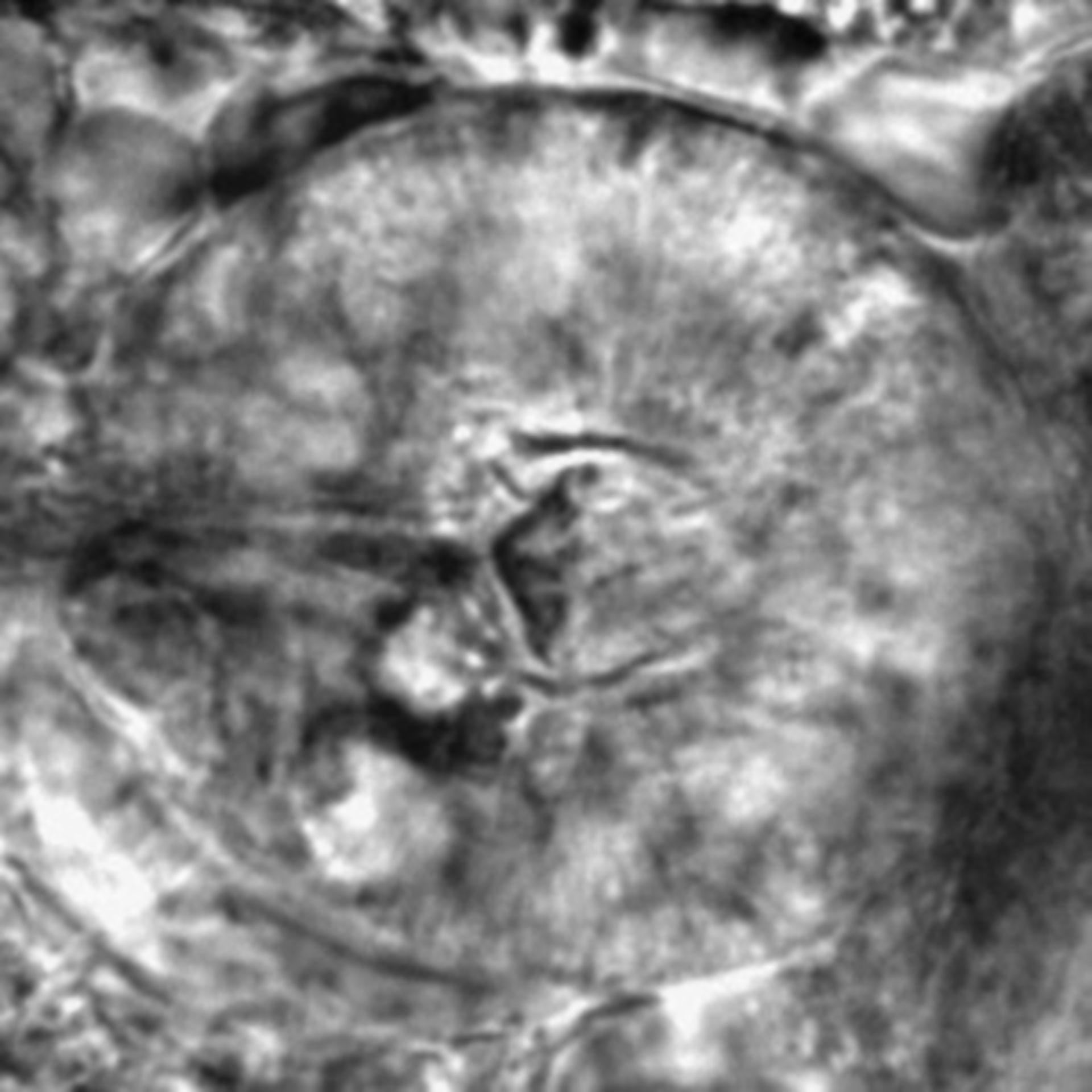 Caenorhabditis elegans - CIL:2623