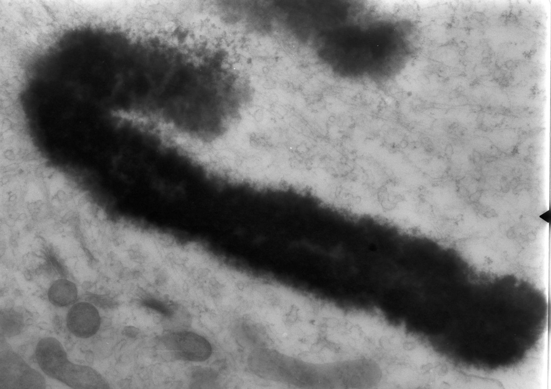 Haemanthus katharinae (Nuclear chromosome) - CIL:11914