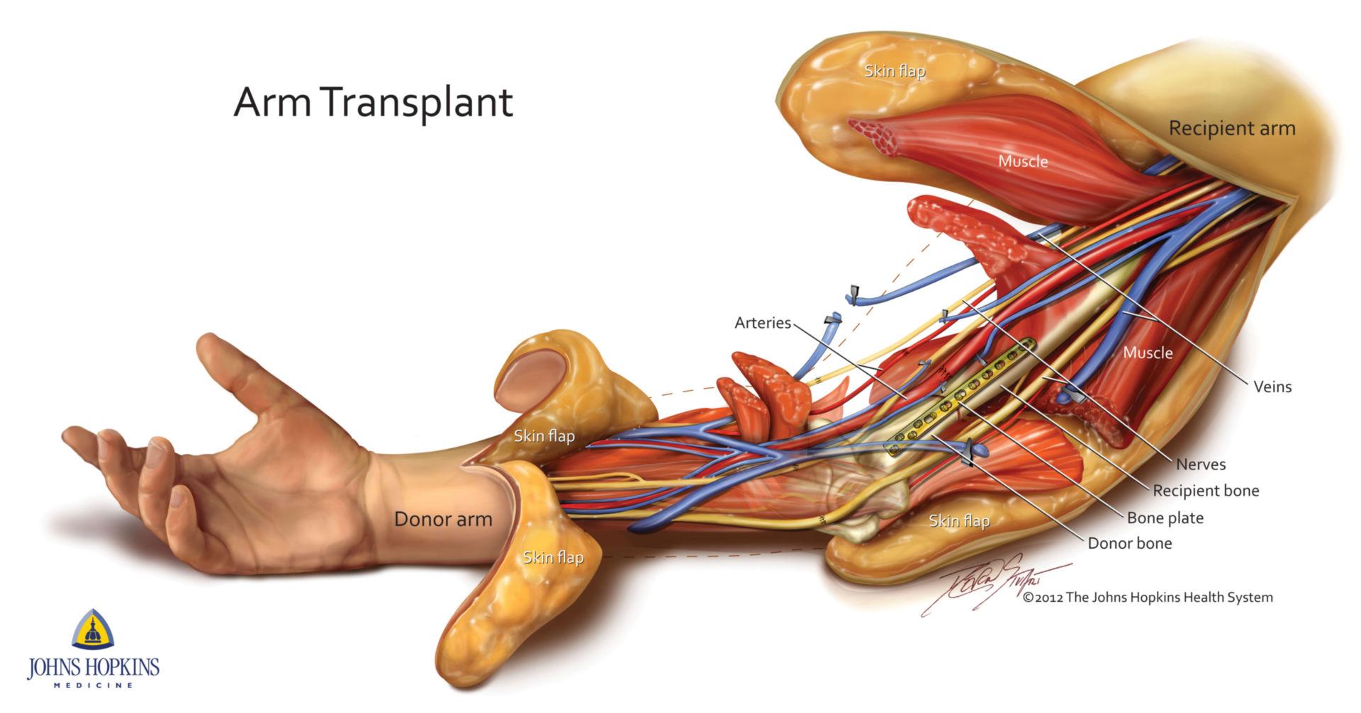 Arm transplant (schematic)