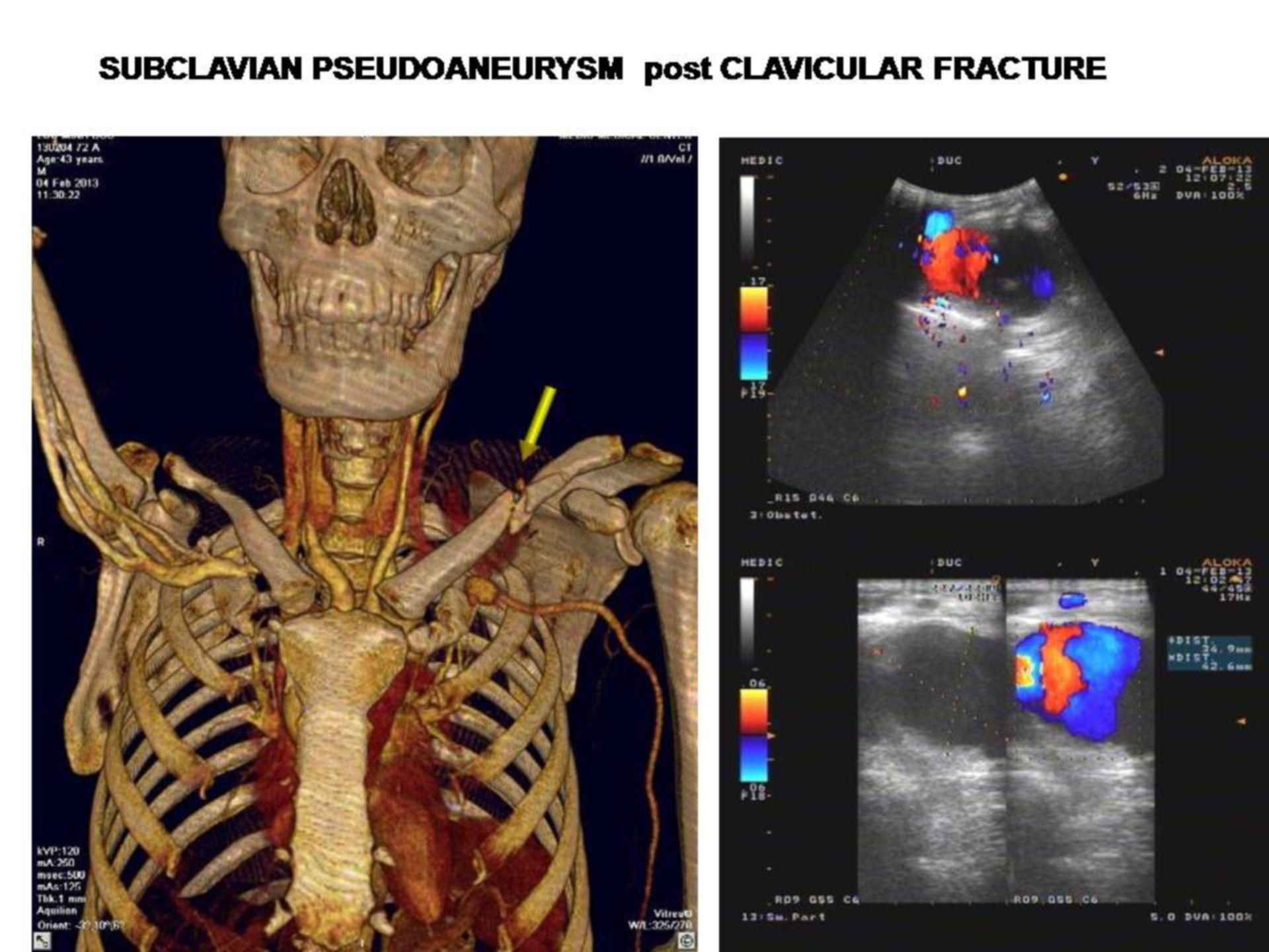 Subclavian Pseudoaneurysm