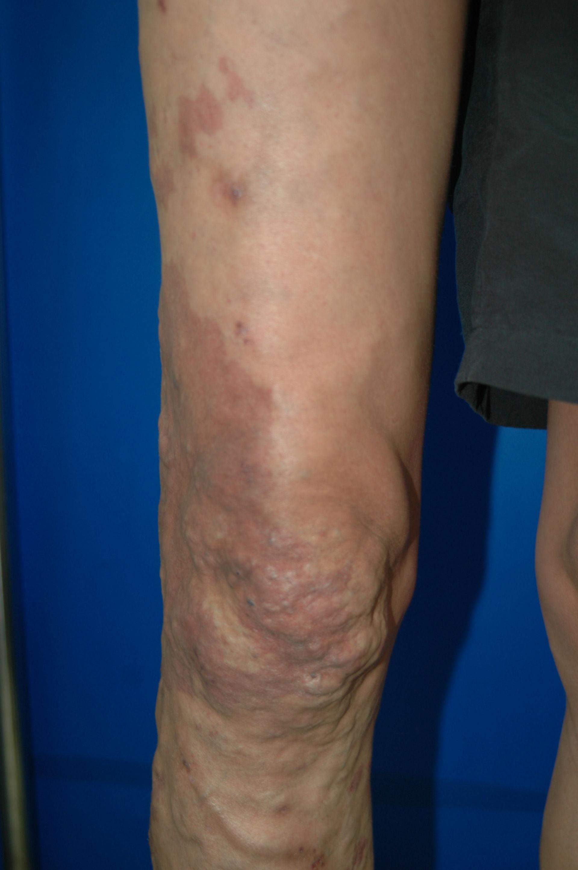 Klippel-Trénaunay-Syndrom postop. Aufnahme von Dr. Ykshim 2