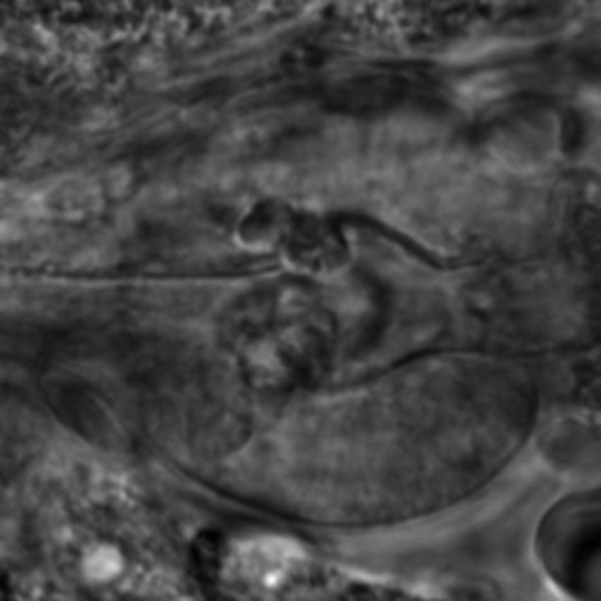 Caenorhabditis elegans - CIL:2689