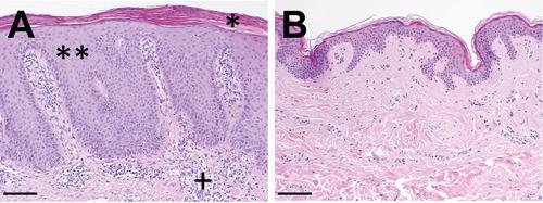 Bei der Schuppenflechte (A) zeigt sich im Vergleich zur gesunden Haut (B) eine vermehrte Schuppung (*) und Verbreiterung der obersten Hautschicht (**). Darunter eine Ansammlung von Entzündungszellen. © Universitäts-Hautklinik Würzburg