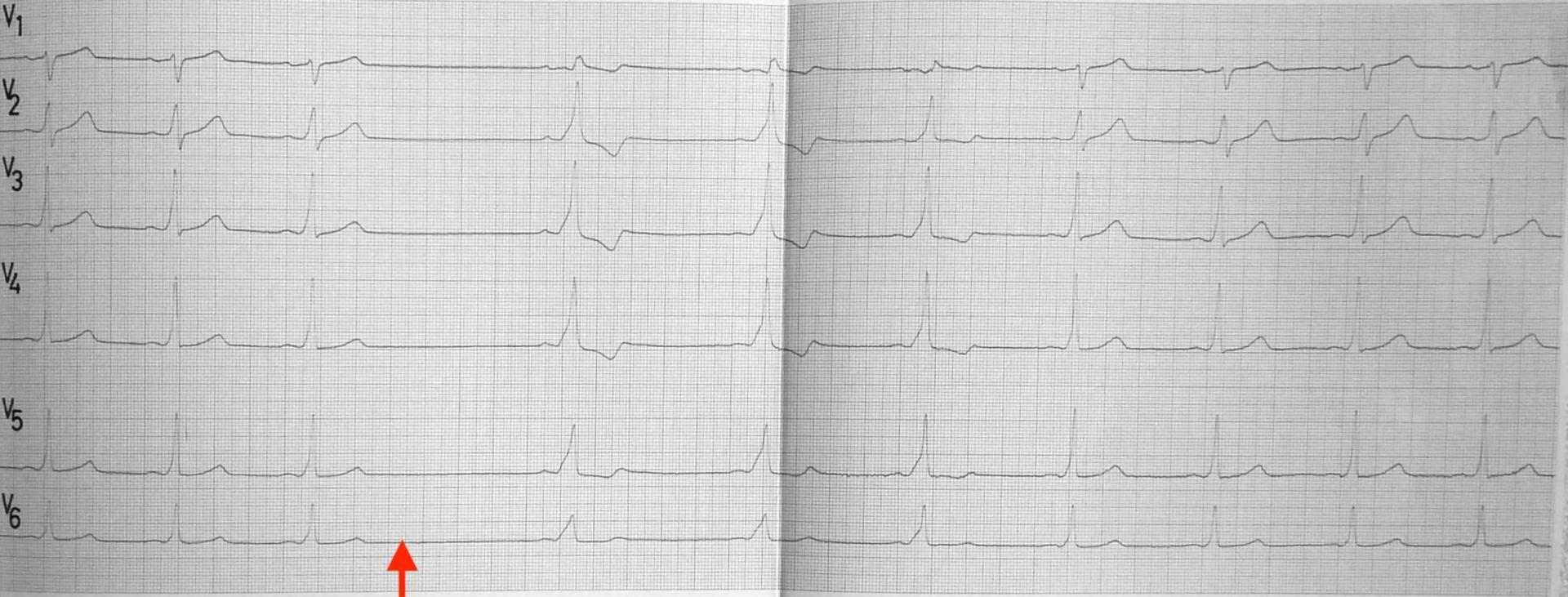 Elektrokardiogramm: Der rote Pfeil zeigt das Einsetzen von erhöhtem Vagotonus durch einen Carotis-Druckversuch.