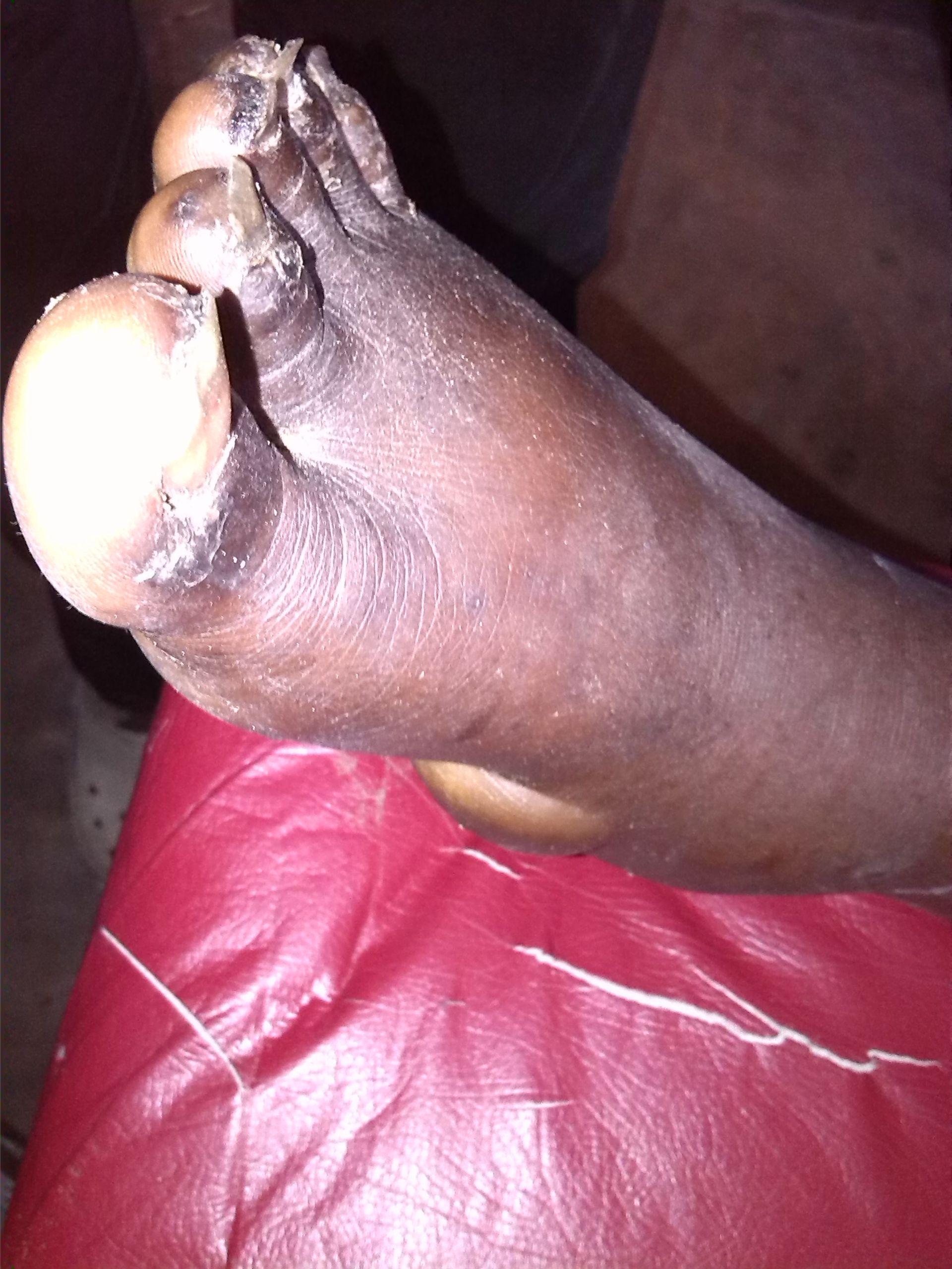 Nasse Gangrän am rechten Fuß
