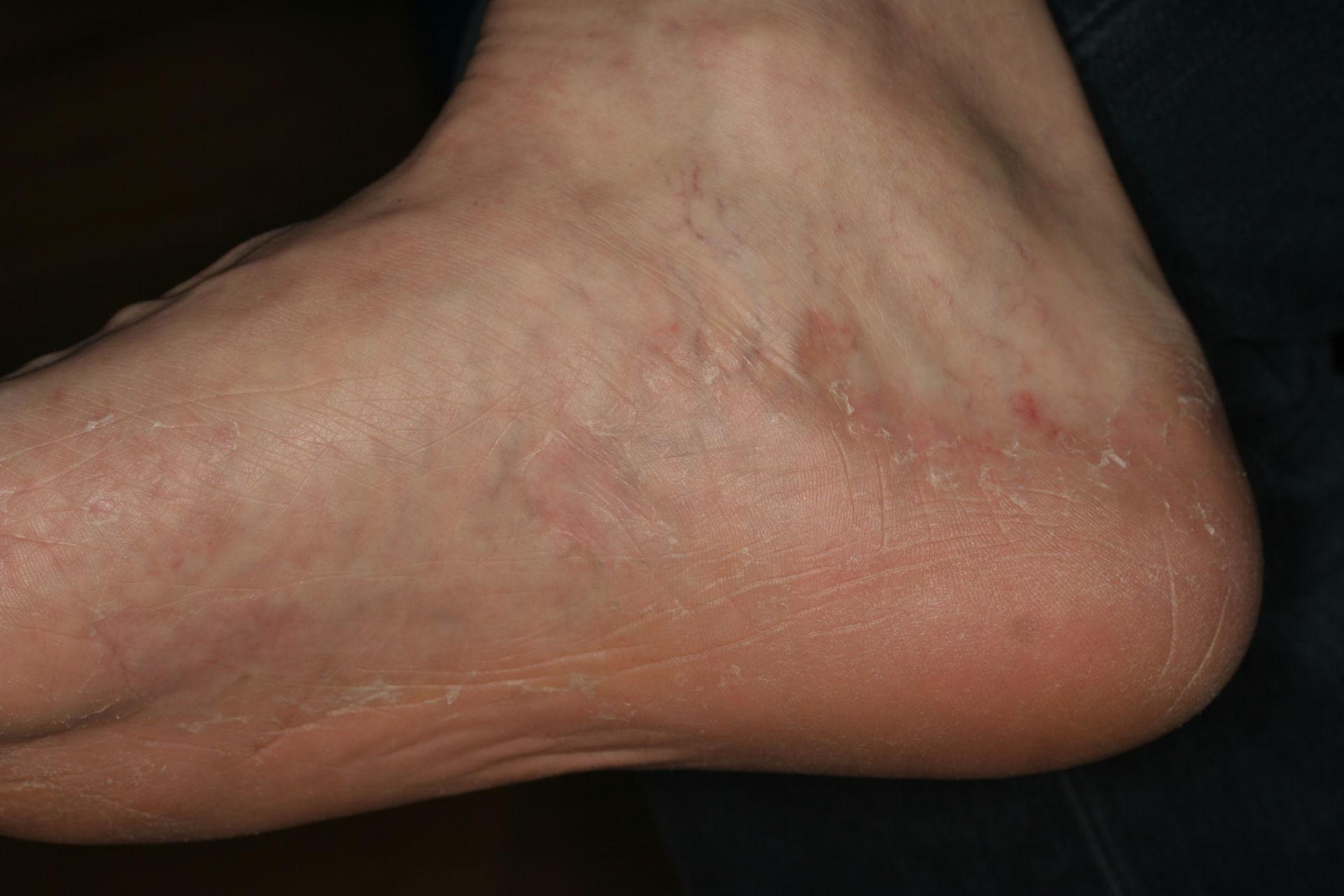 Athlete's foot - Tinea pedis