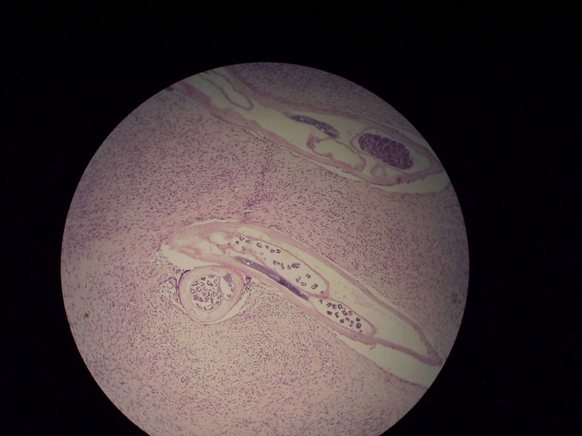 Onchozerkom Mikrofilarien