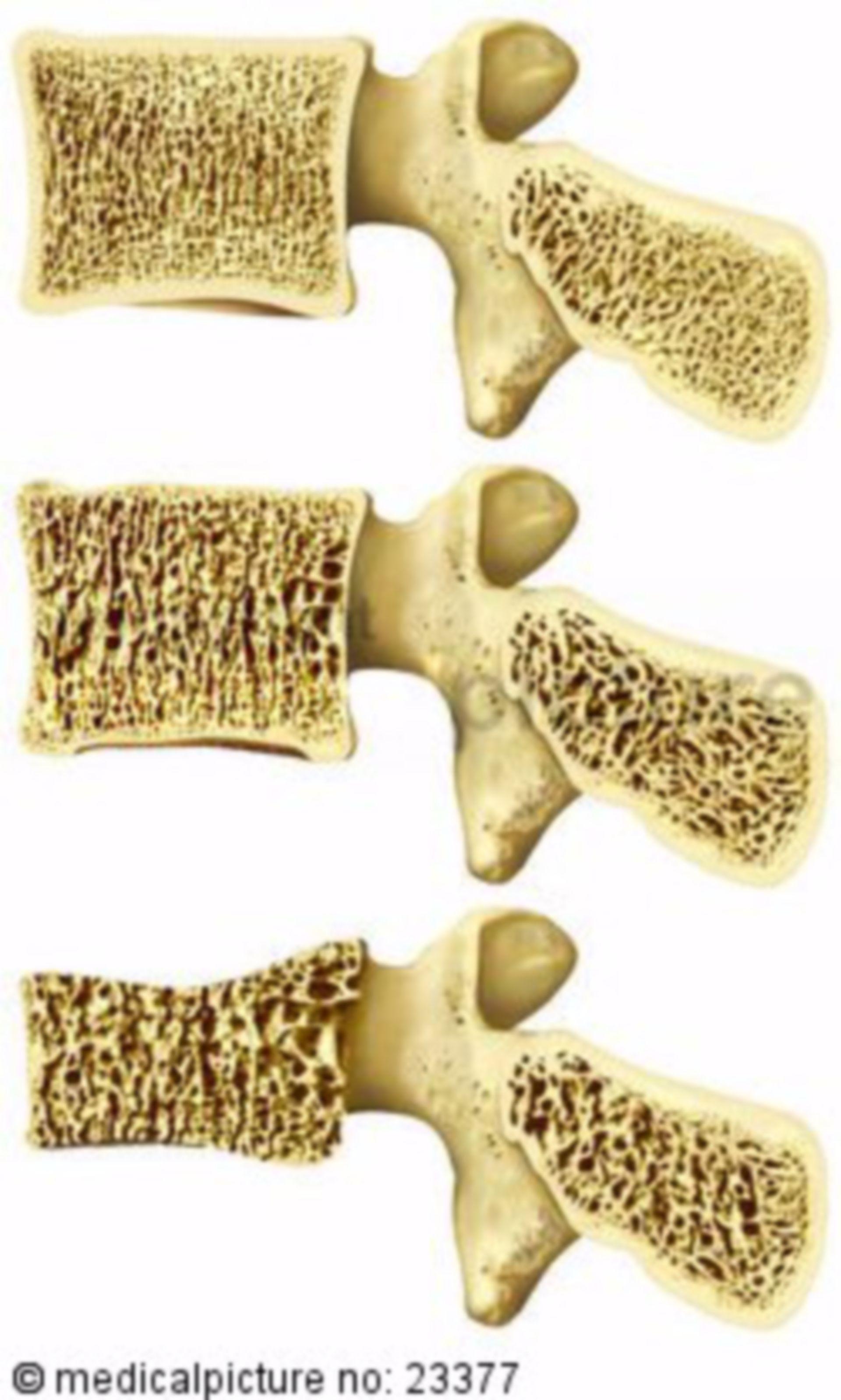 Ospteoporosi della spina dorsale