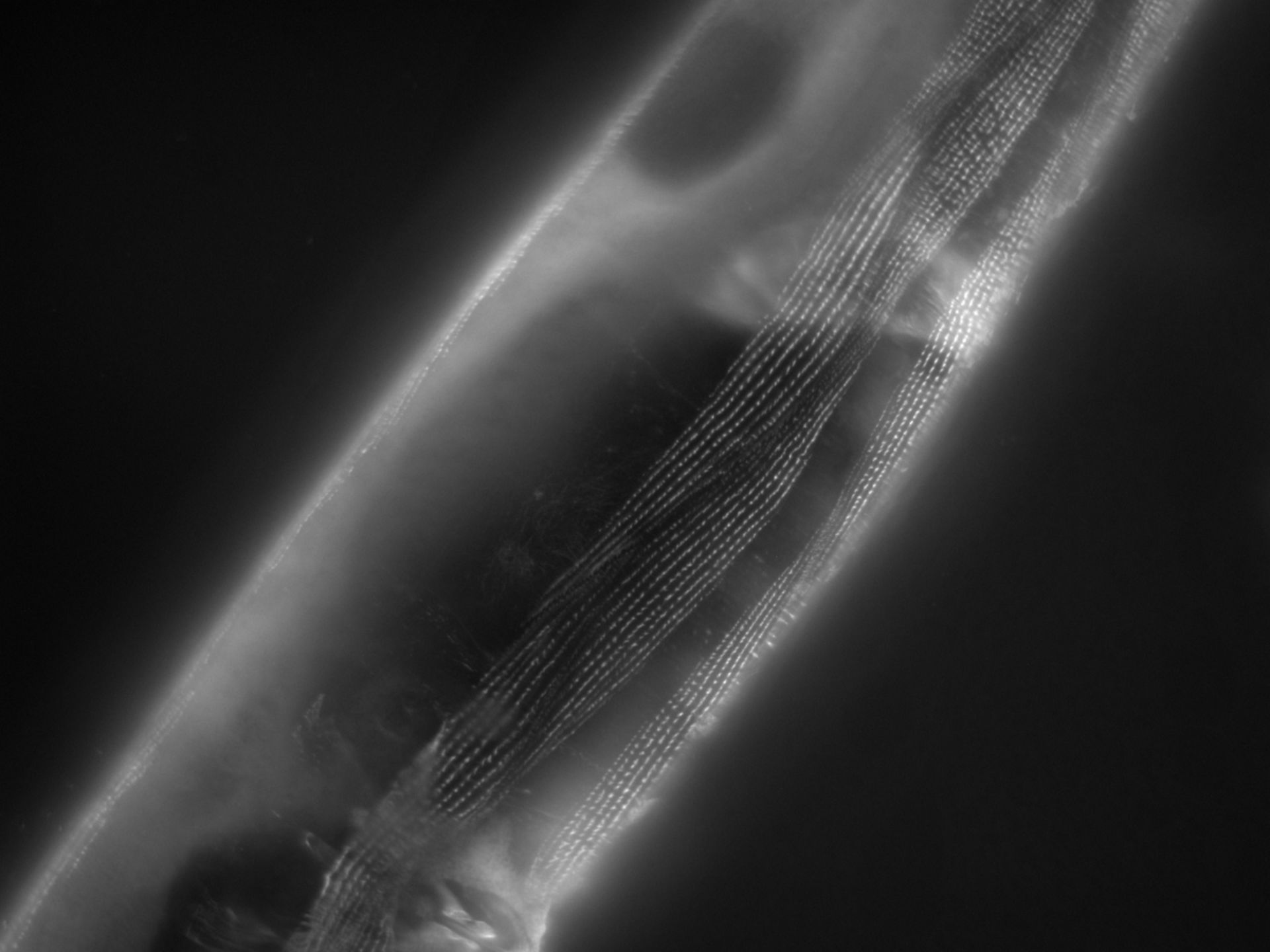 Caenorhabditis elegans (Actin filament) - CIL:1171