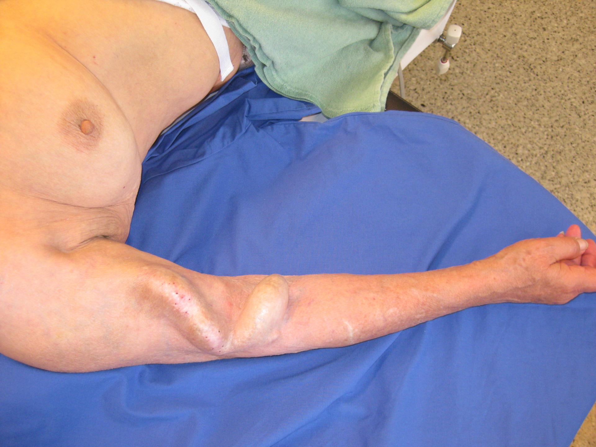 AV-shunt in dialysis