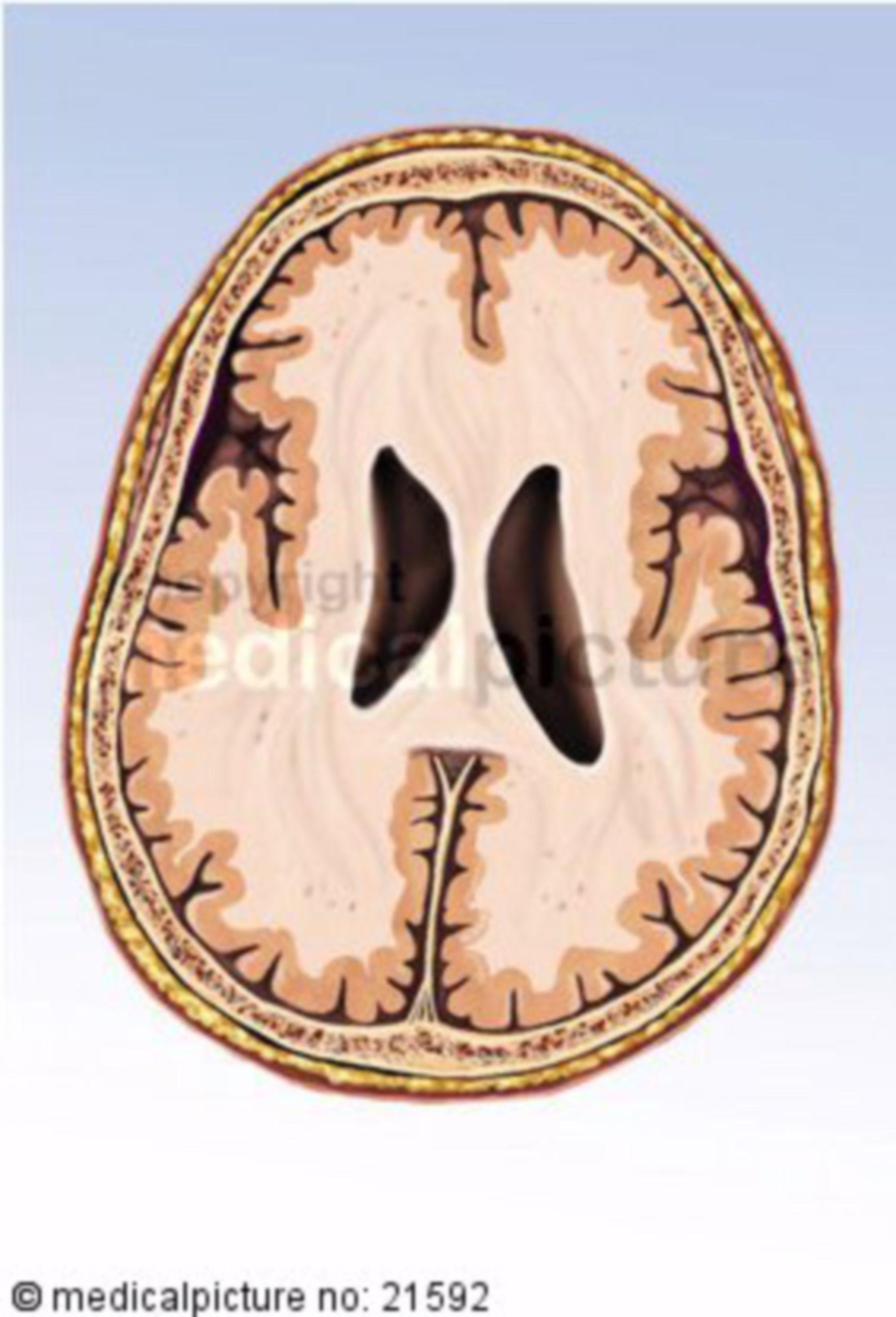 Horizontalschnitt des Gehirns auf Höhe der Basalganglien
