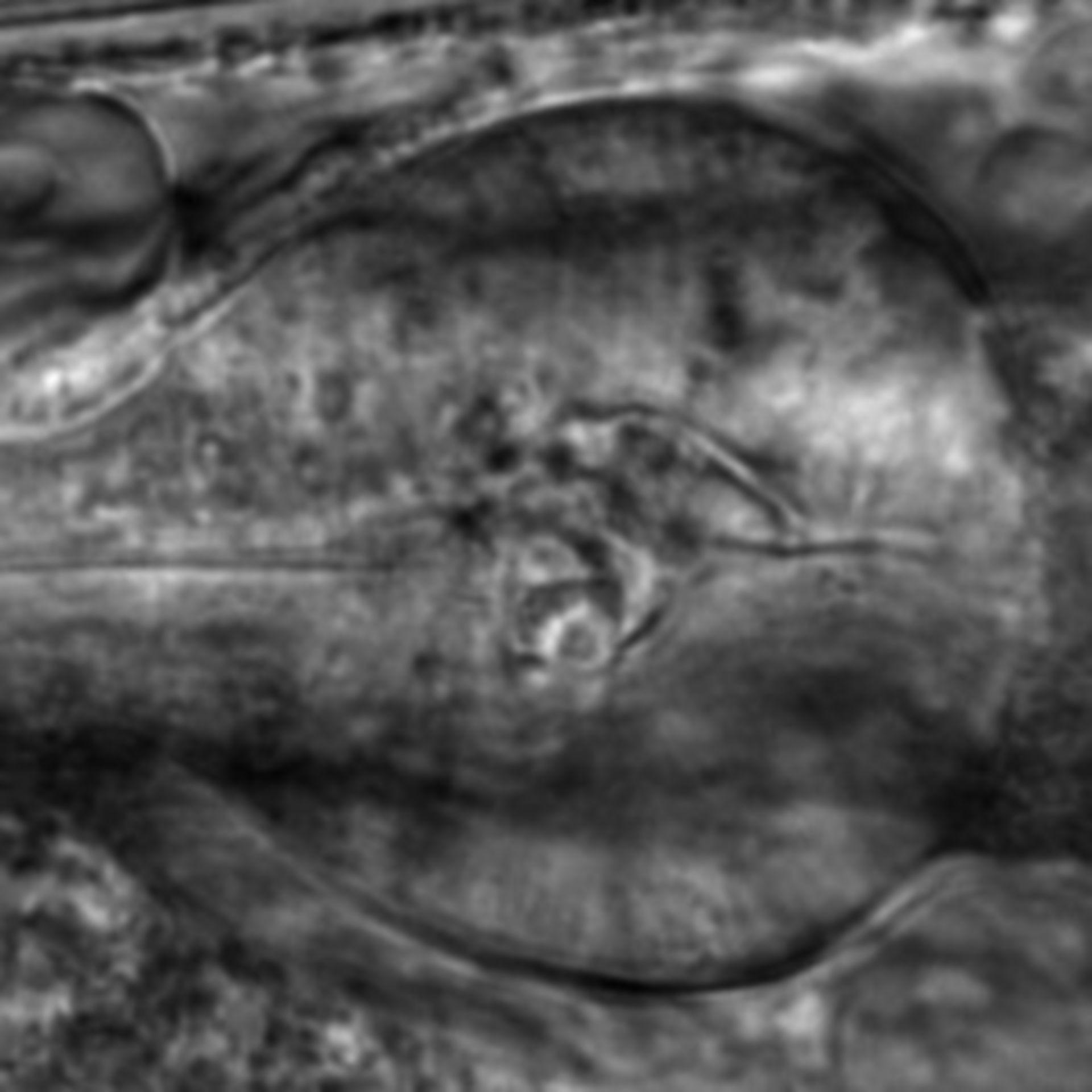 Caenorhabditis elegans - CIL:2824