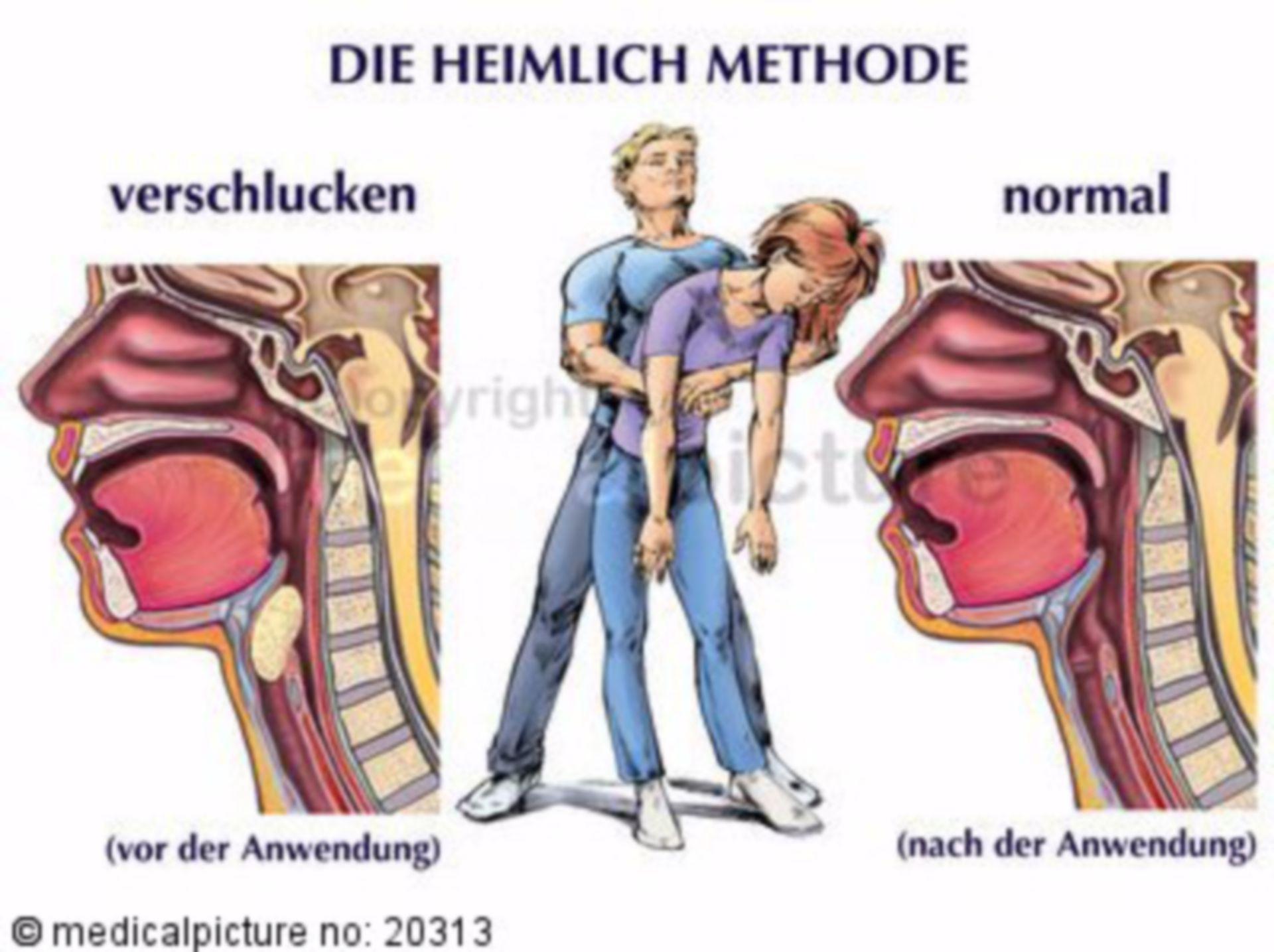 Heimlich-Handgriff