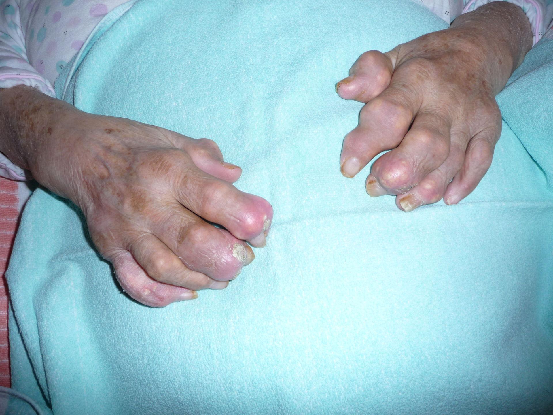 severe gout atrophy