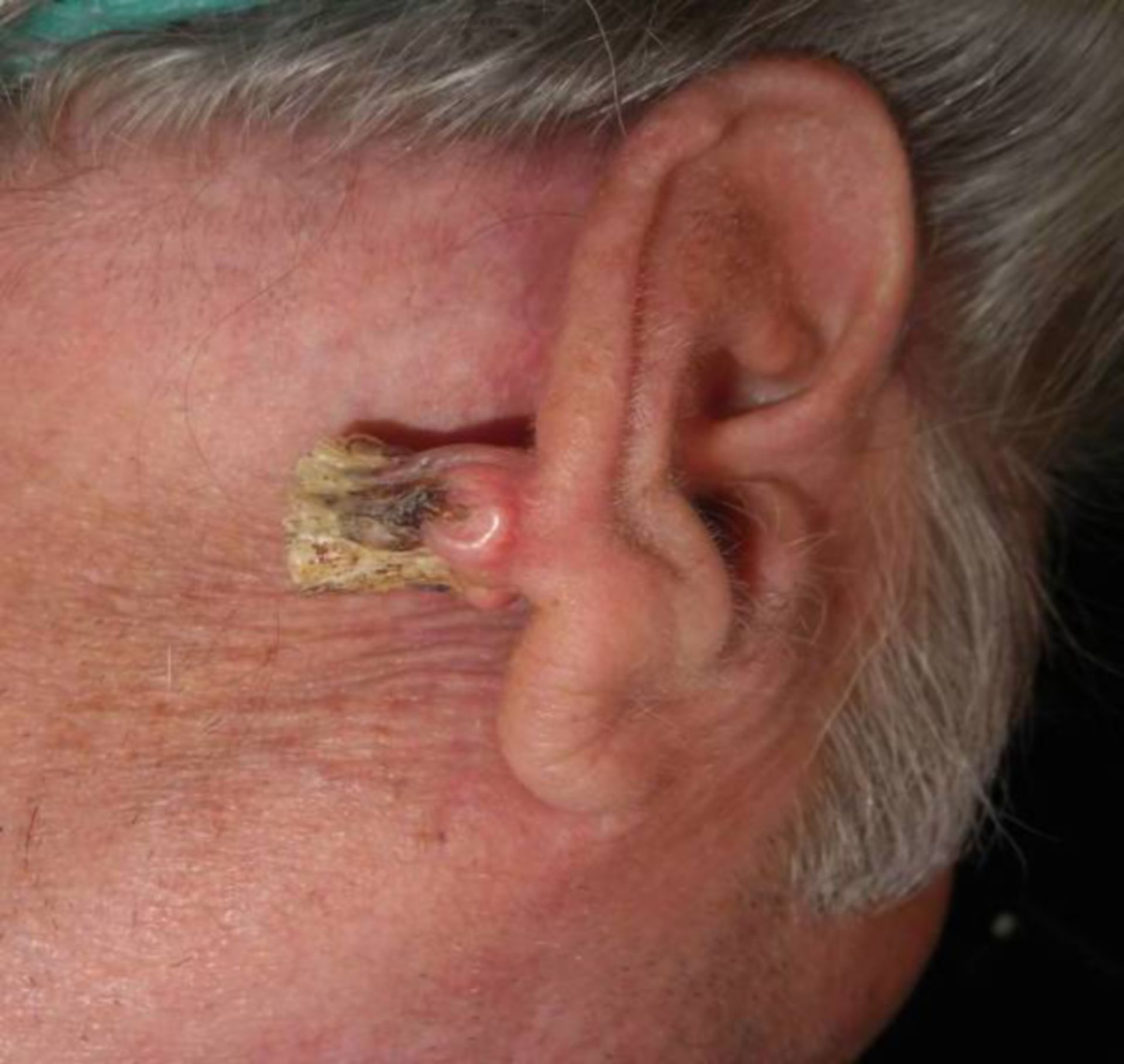 Tumor right auricle