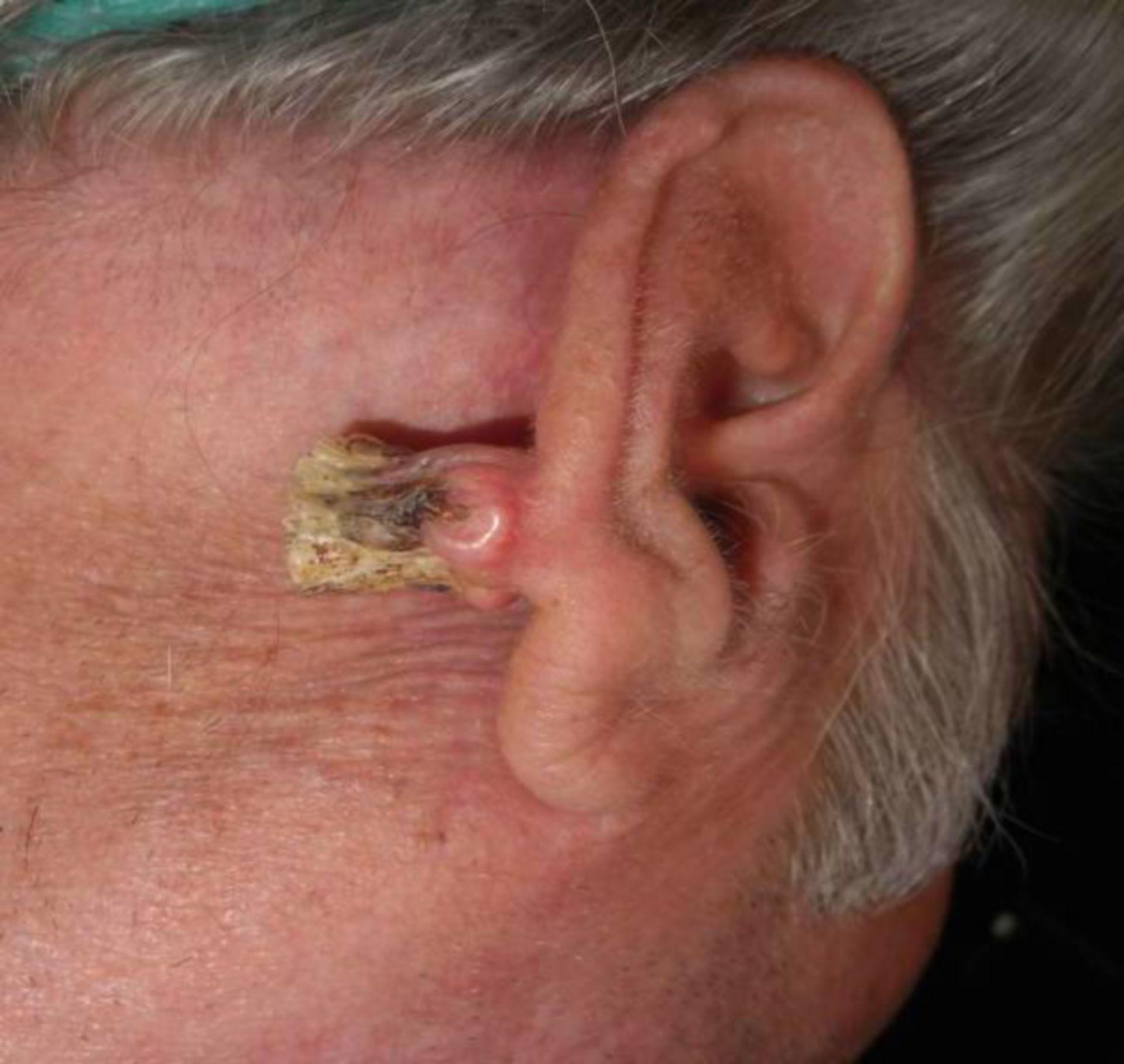Tumor rechte Ohrmuschel