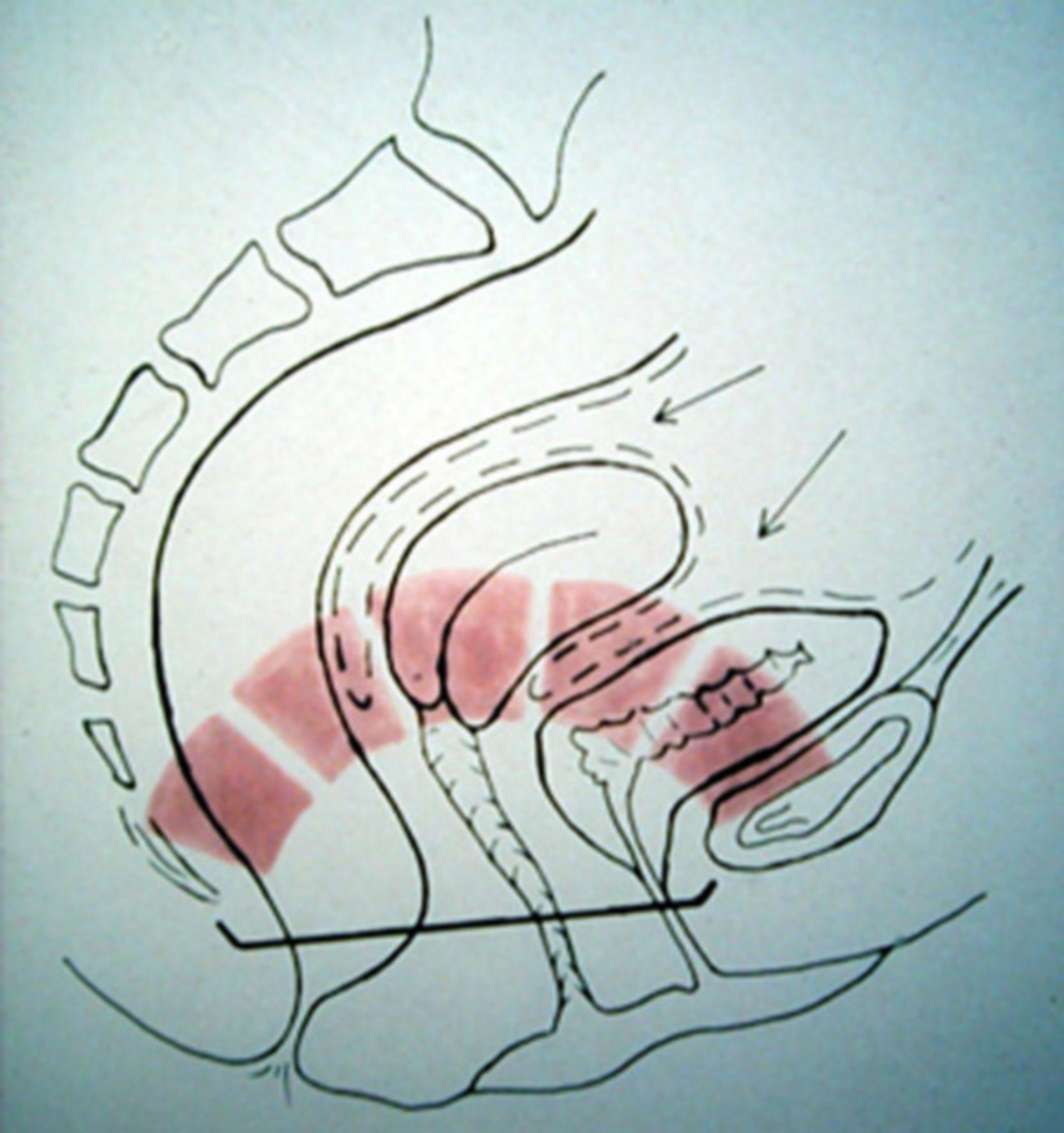 Beckenorgane als selbst tragendes Gewölbe (Schema)