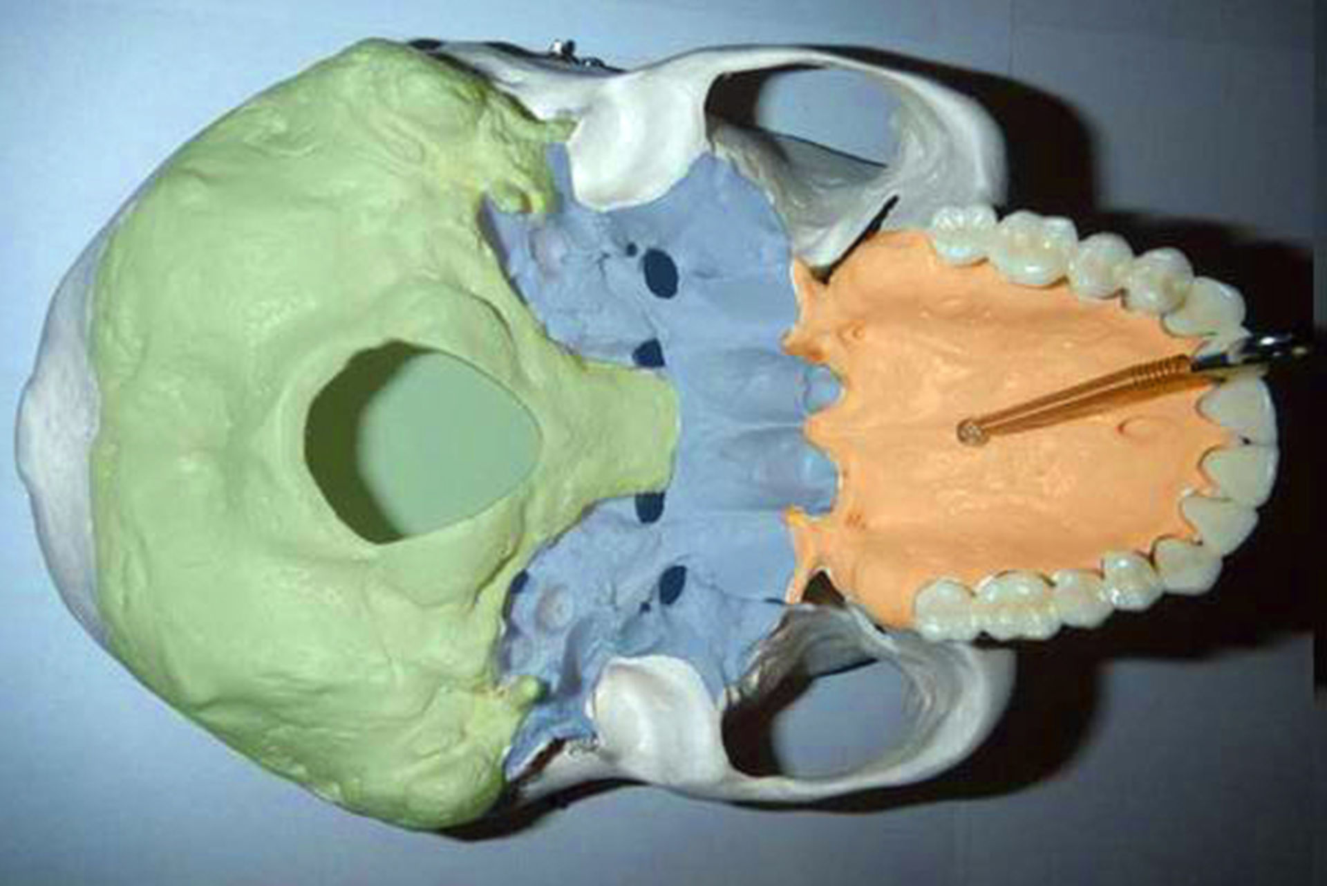 Base of skull - outside