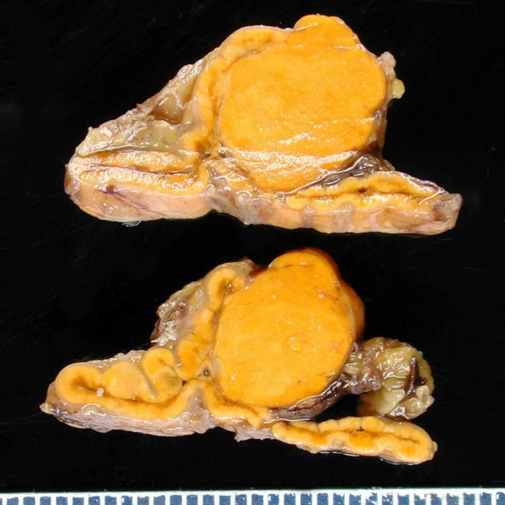 Adrenal adenoma - Conn syndrome