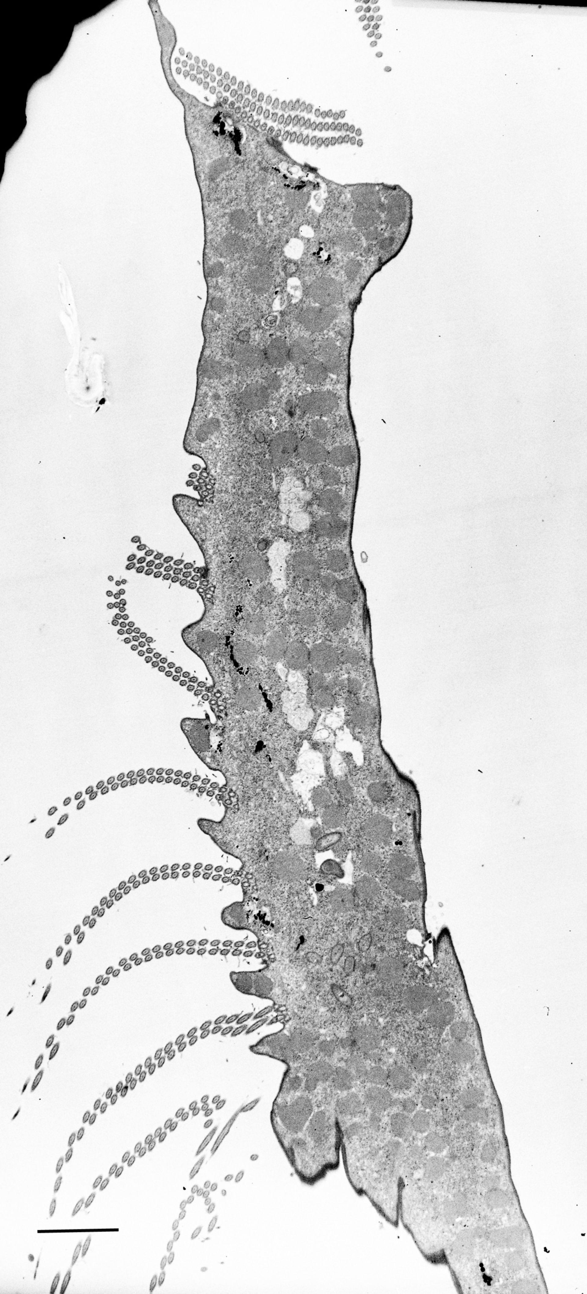 Euplotes sp. (Cytoplasm) - CIL:12337