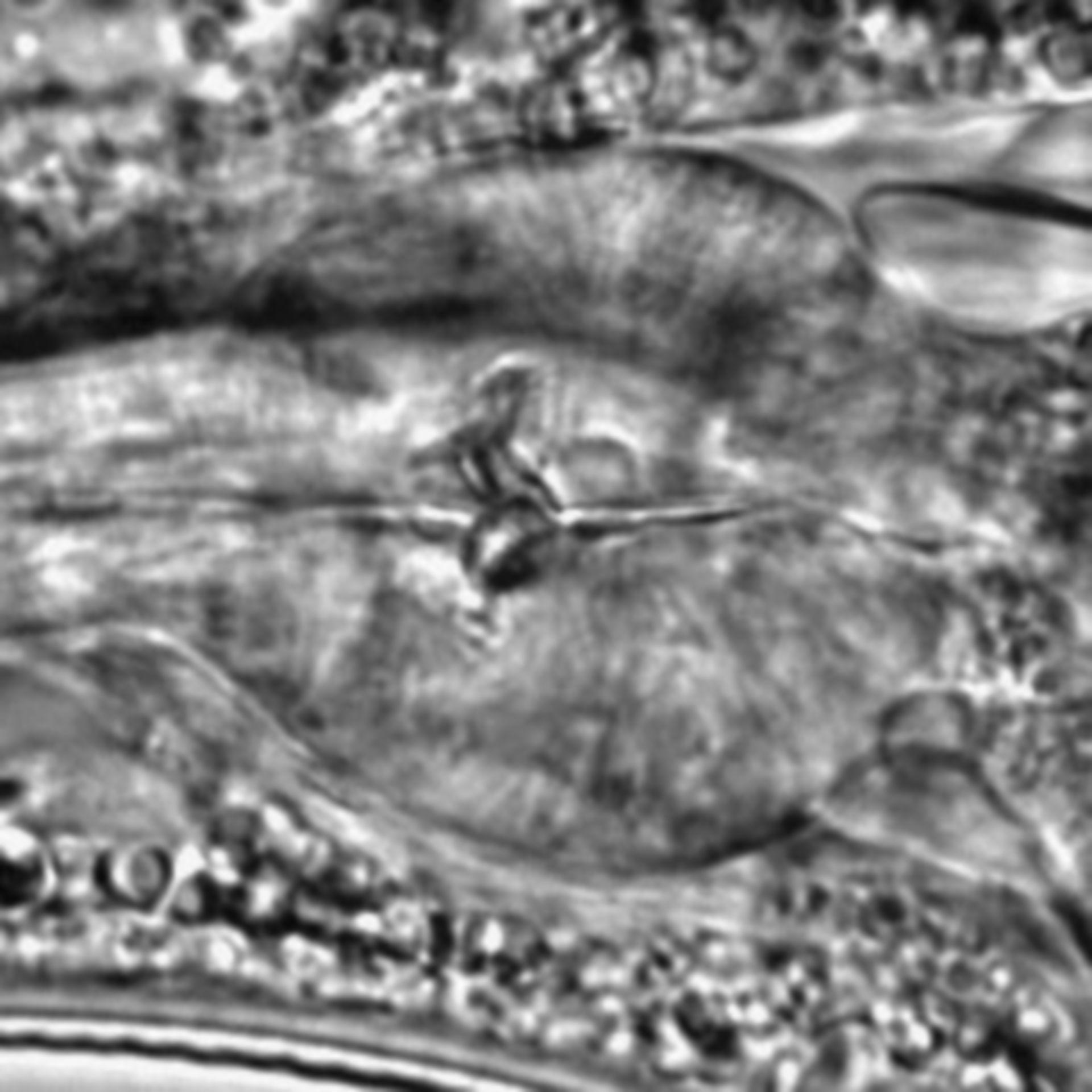 Caenorhabditis elegans - CIL:1779