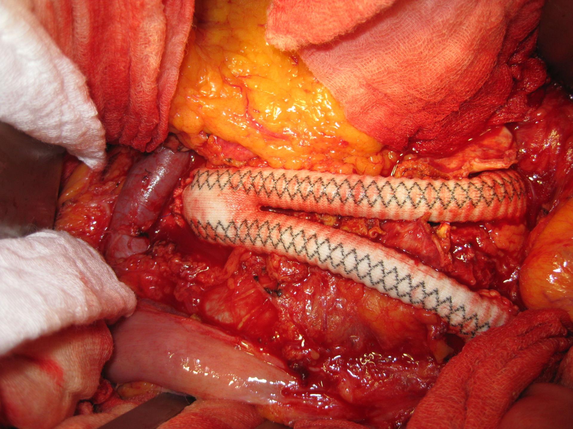 Aneurysm of the abdominal aorta - Y-prosthesis
