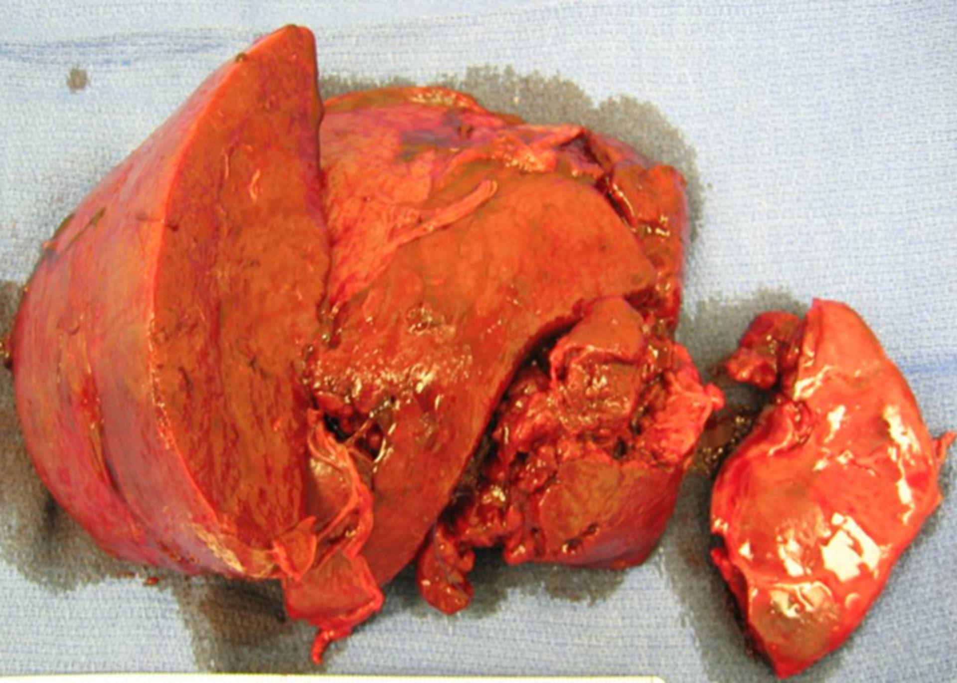 Atraumatica rottura della milza in amiloidosi AA (pezzo operatorio)