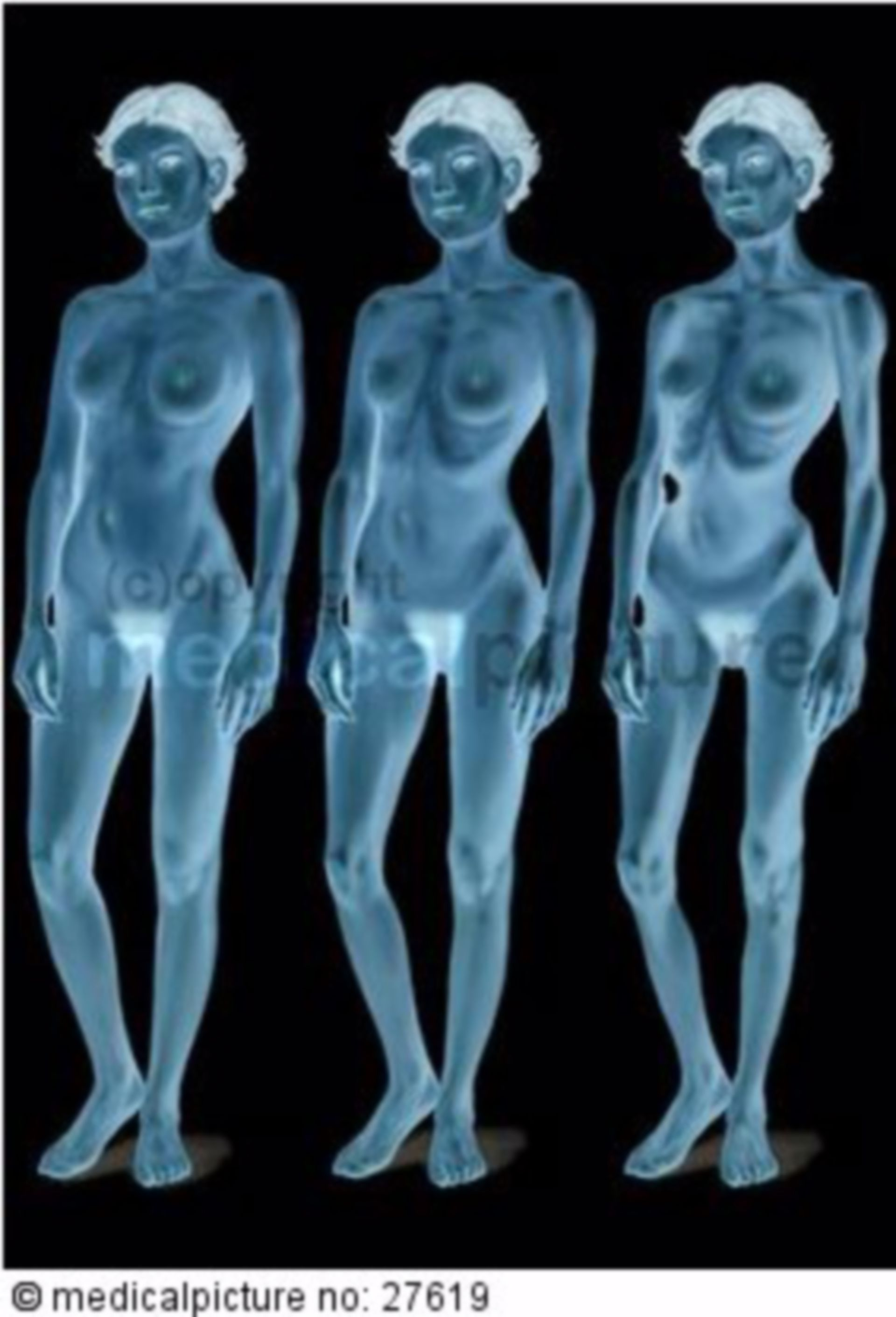 Anorexia, Development
