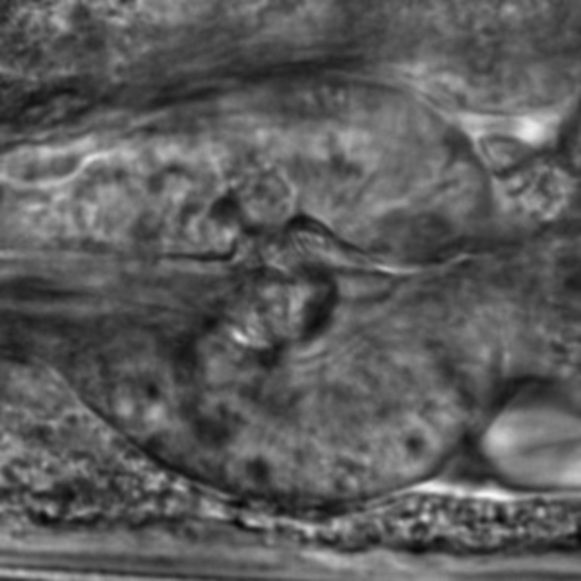Caenorhabditis elegans - CIL:2774