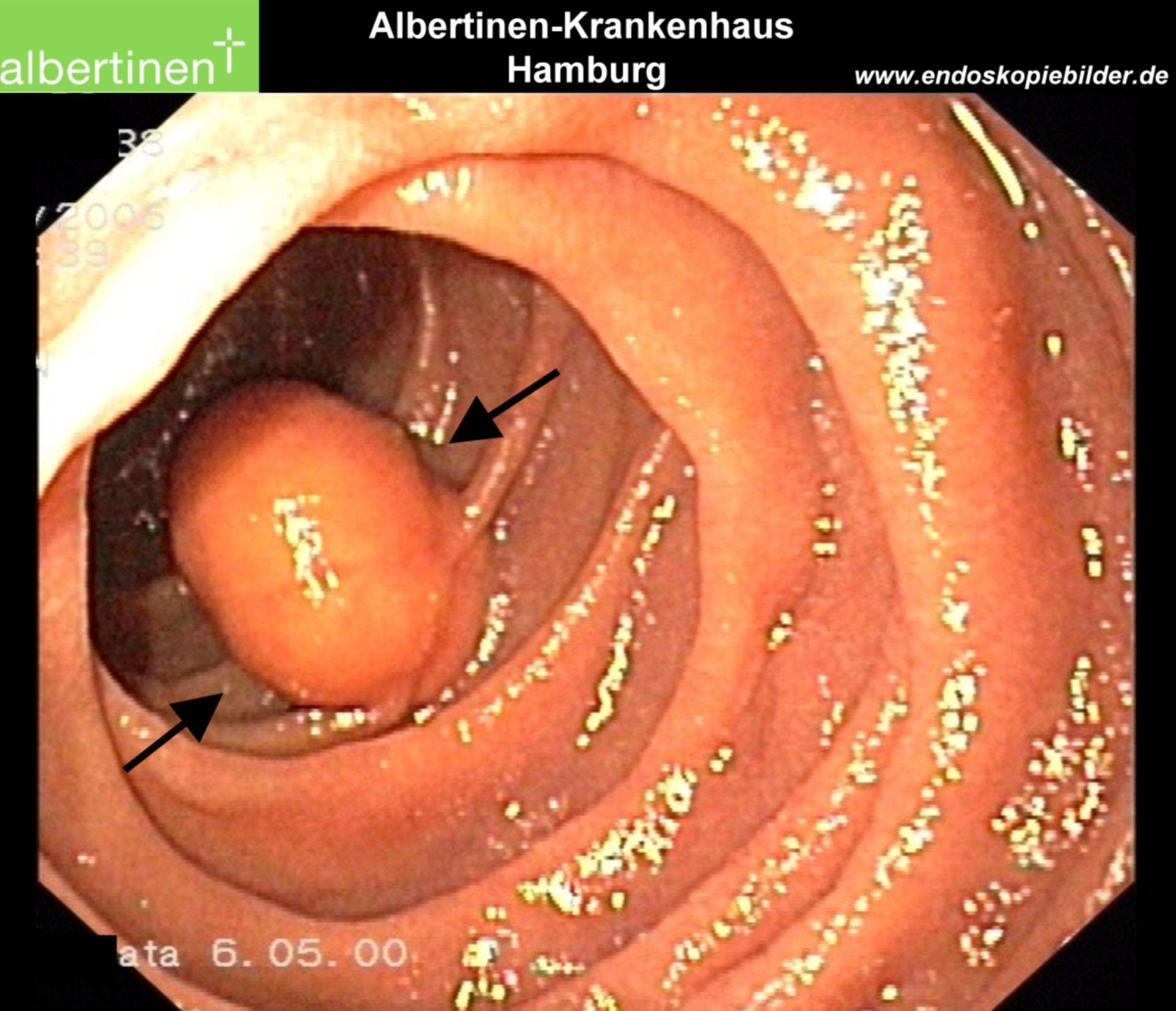 Duodenal lipoma endoscopy, arrows