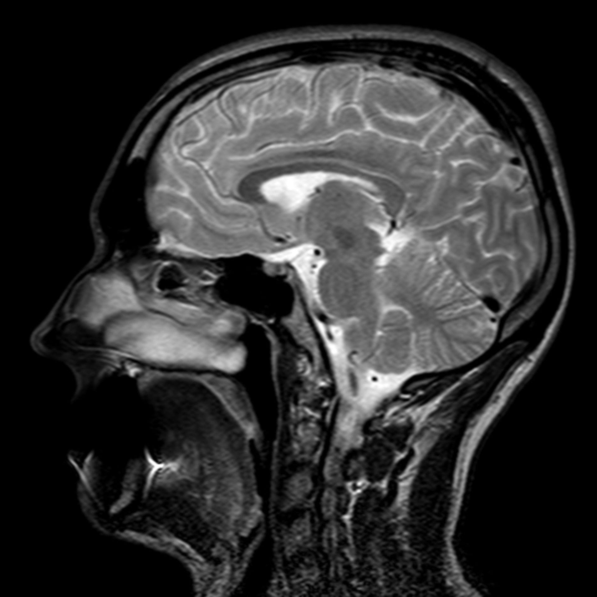 (16/34) MRT Schädel in Sagittalebene, T₂‐gewichtet