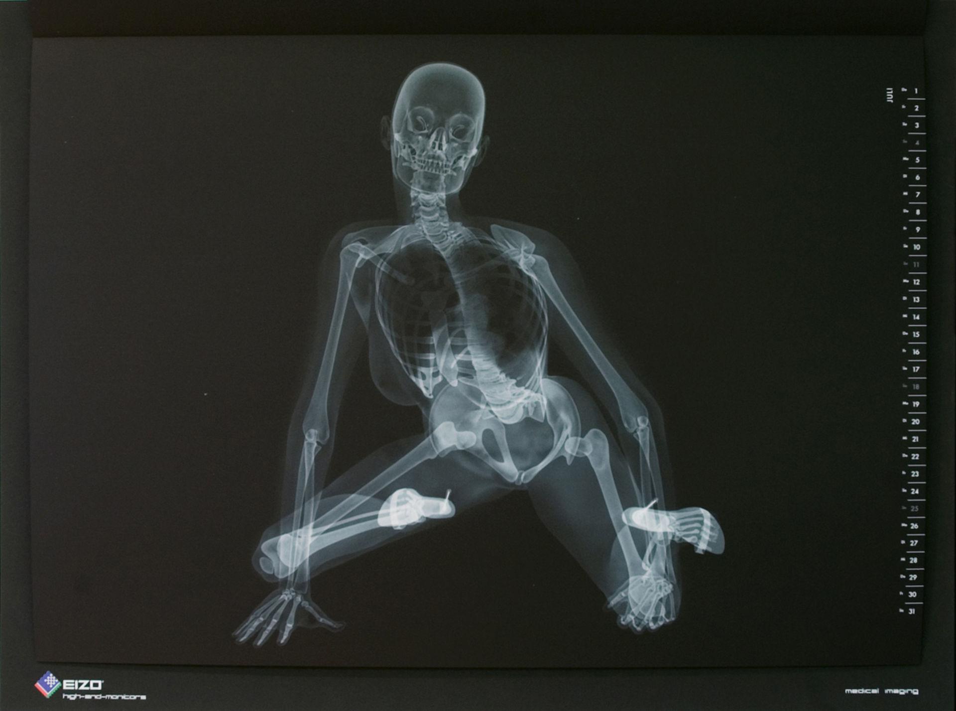 X-ray calendario pinup di EIZO (luglio)