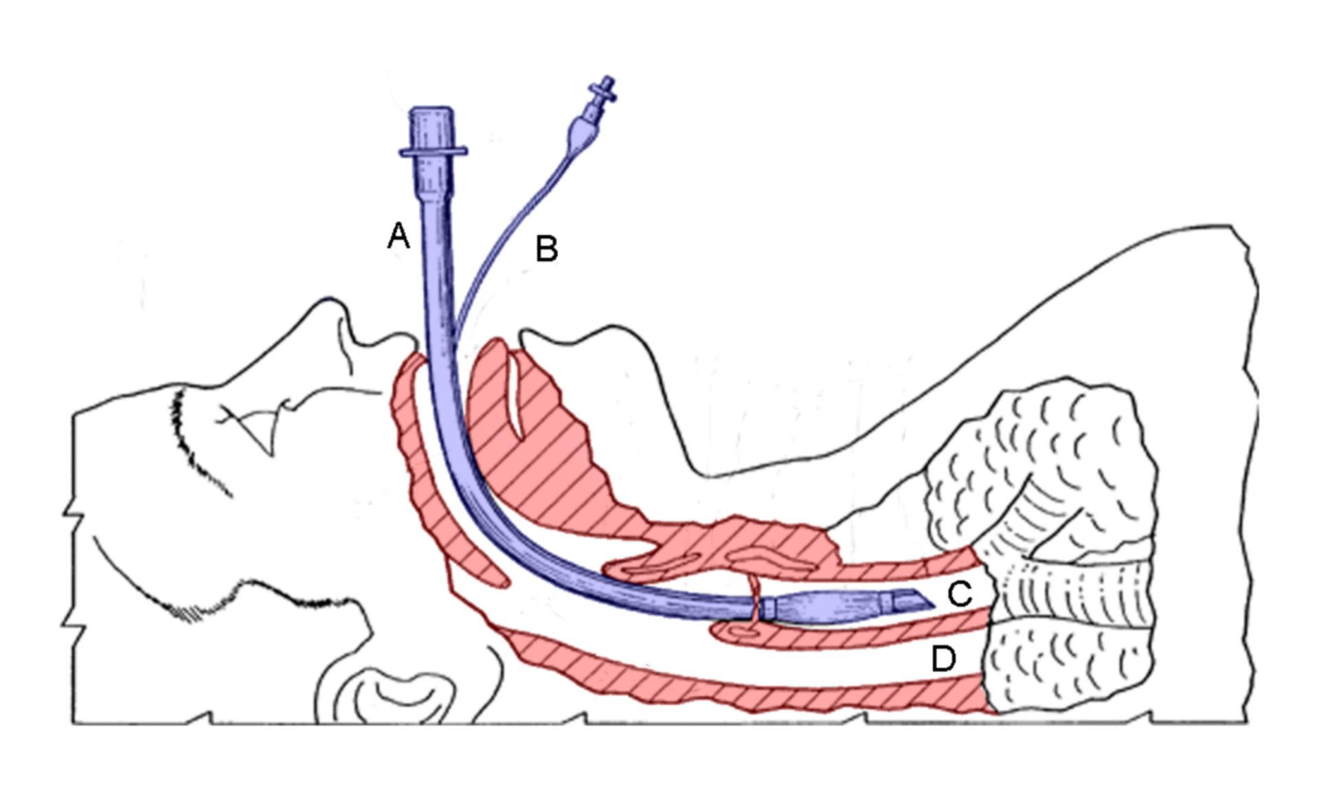 Intubación endotraqueal (esquema)