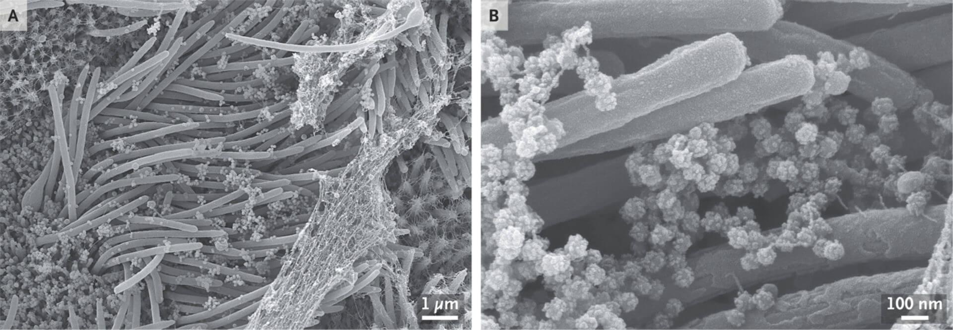 SARS-CoV-2 unterm Mikroskop