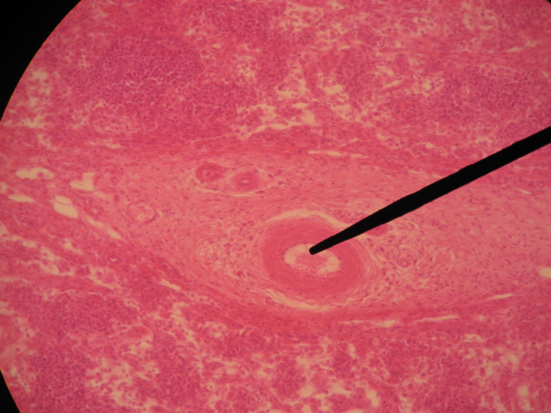 Lymphknoten des Rindes 6 - Hilus und Blutgefäße