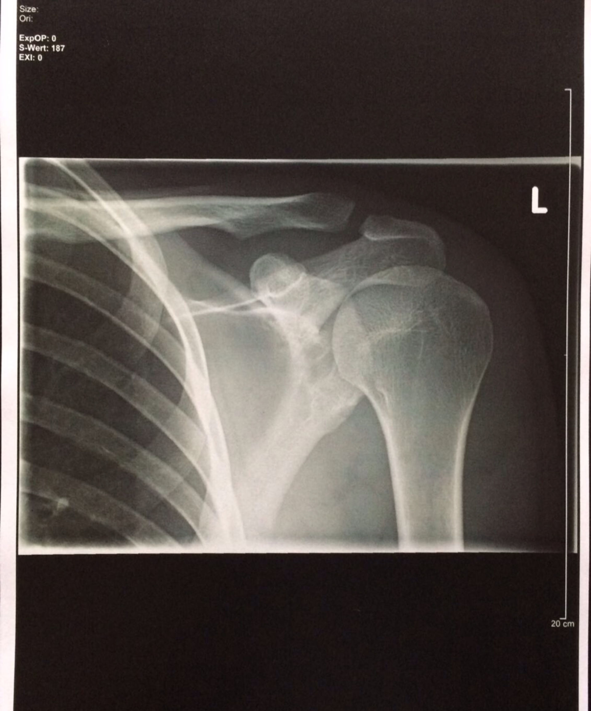 Röntgenbild Schlüsselbein