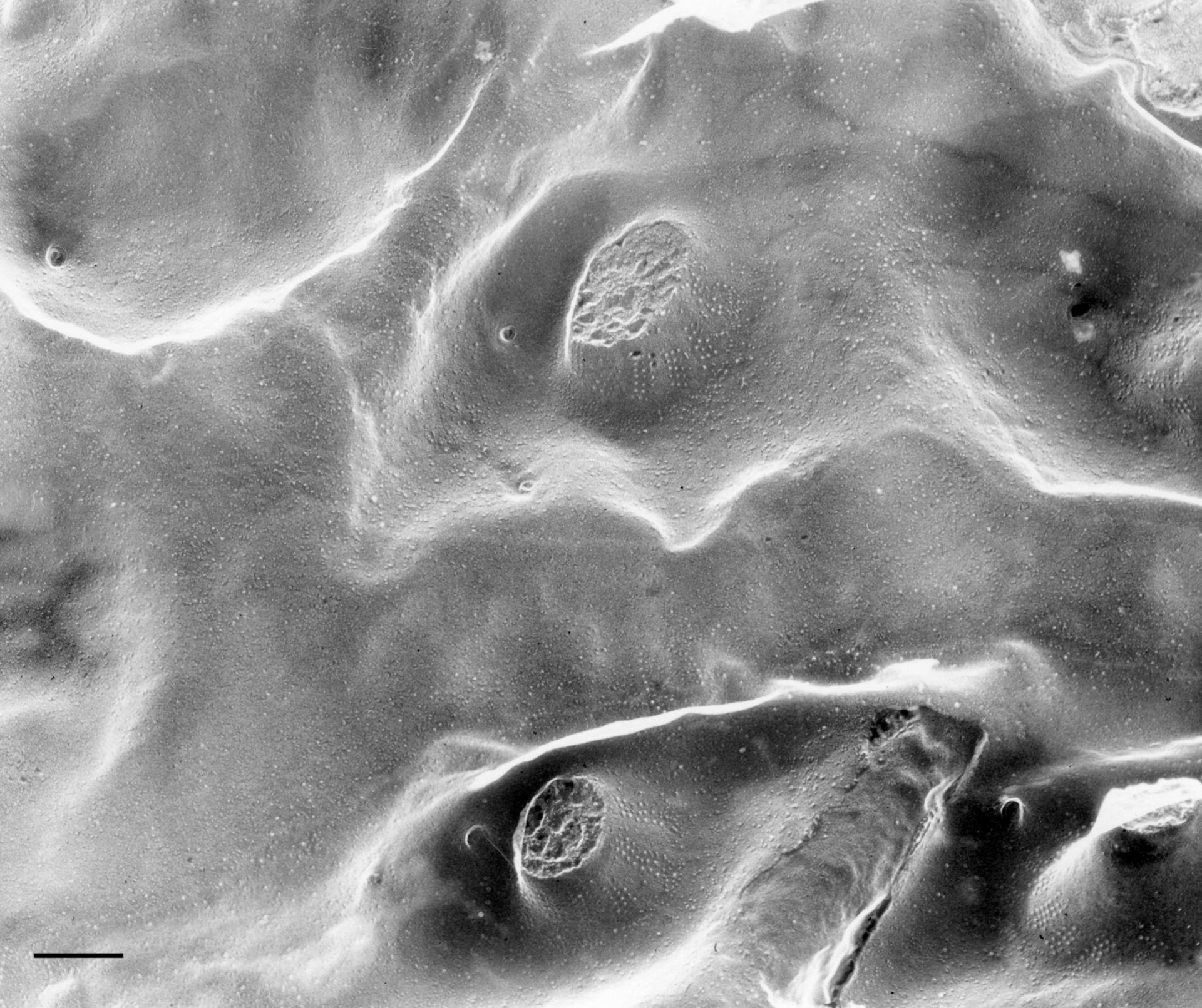 Paramecium multimicronucleatum (Trichocyst docking sites) - CIL:36613