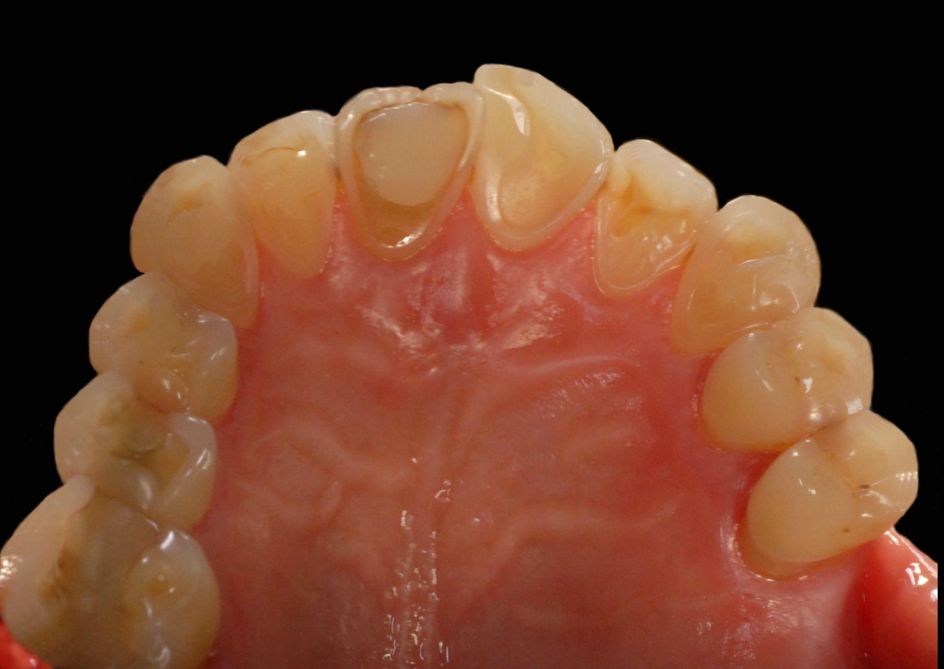 Dental erosions, caused by bulimia