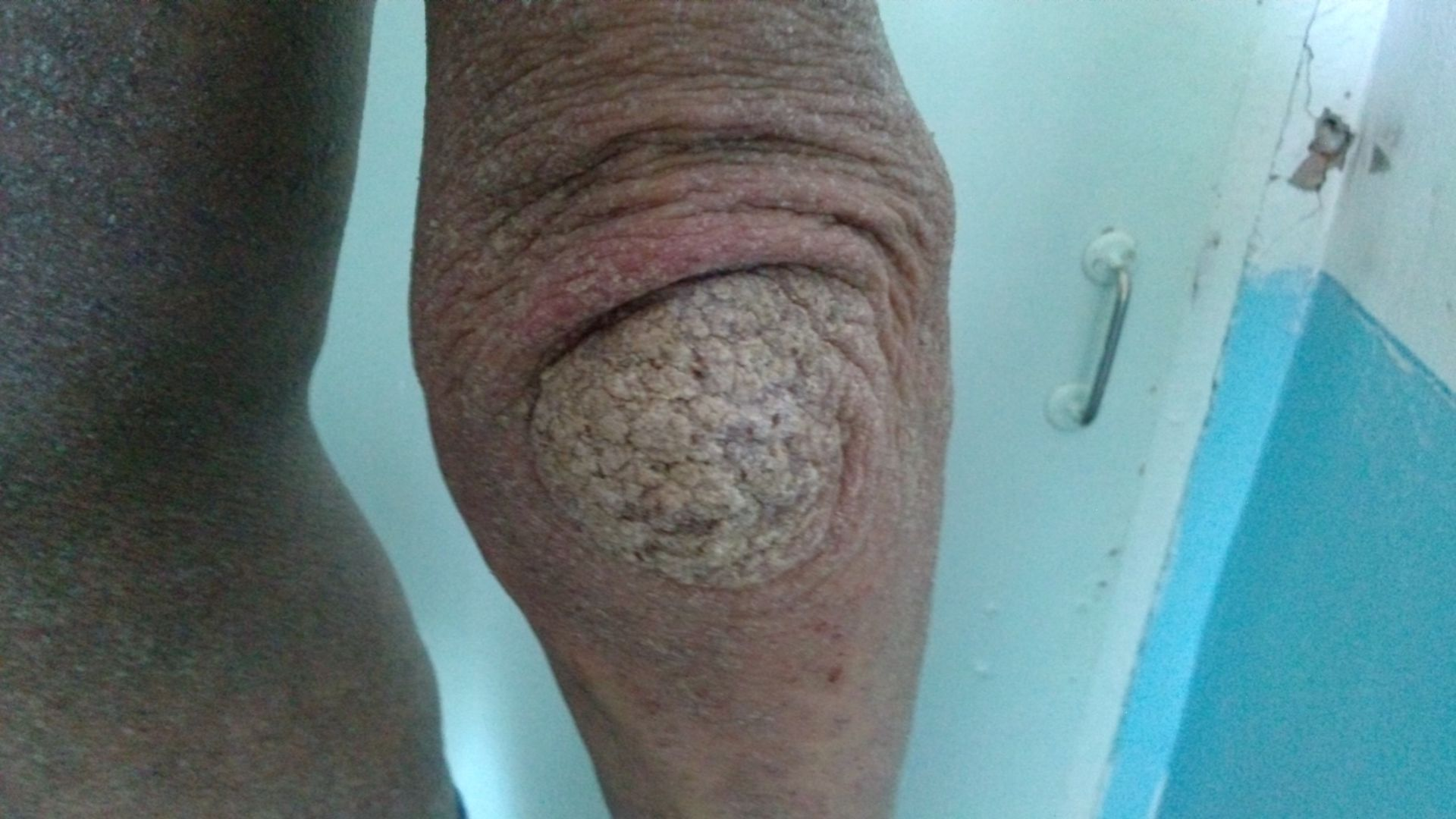 Norwegian scabies HIV + on the elbow