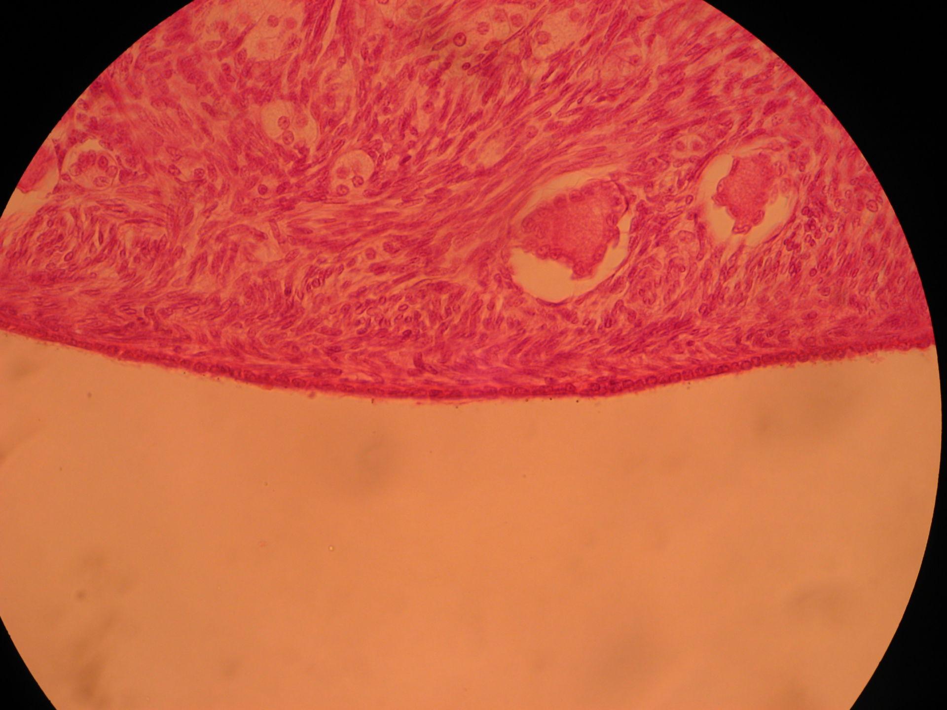 Veterinary Medicine: Ovary of a Cat (6)- Gonadal Epithelium