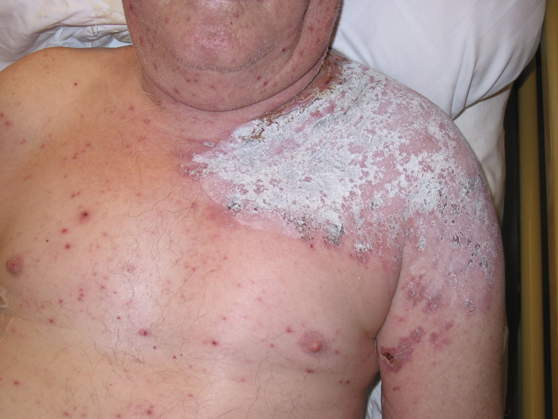 Shingles - herpes zoster thoracicus