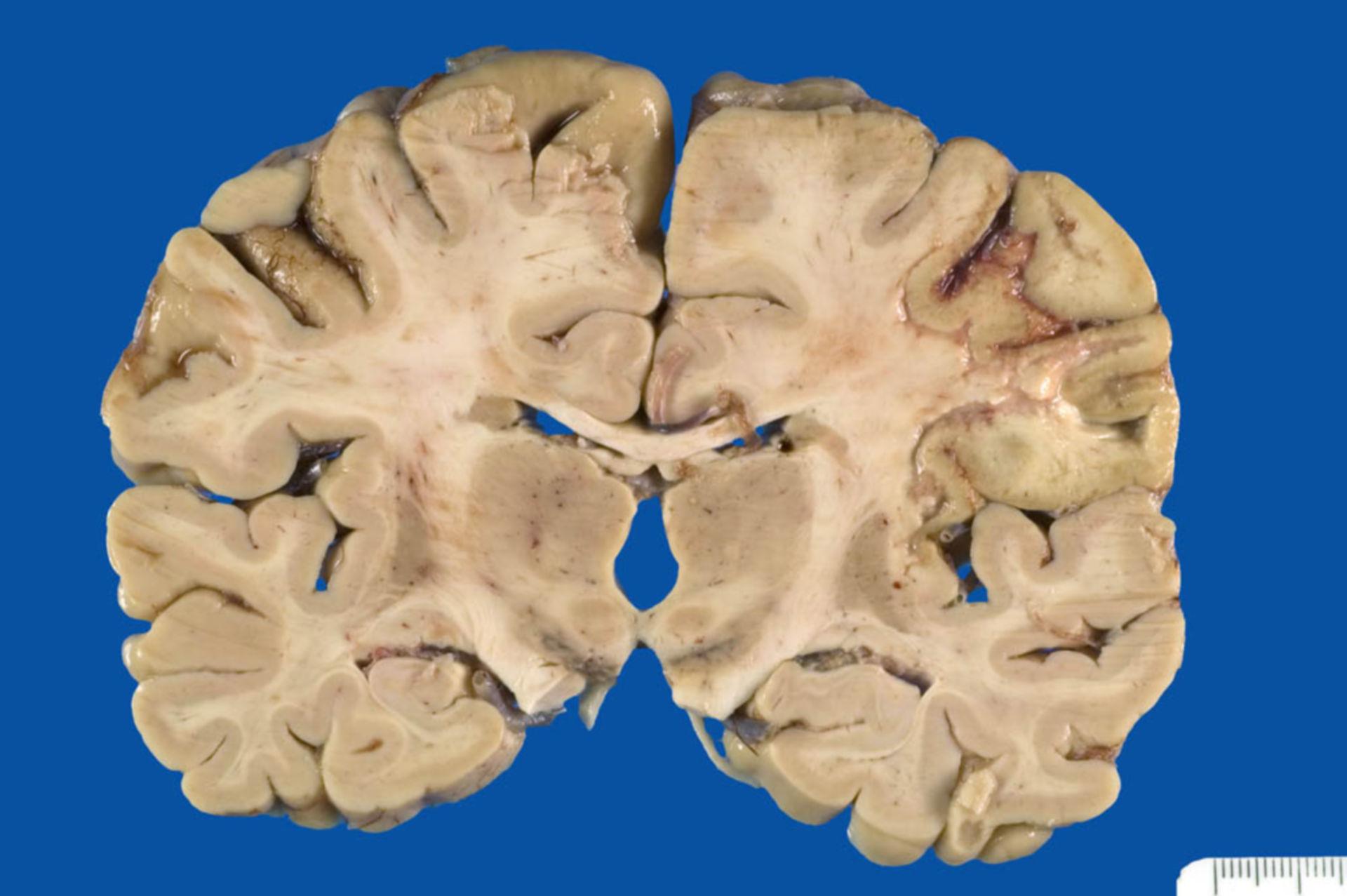 Anämische Encephalomalazie im Stadium der Resorption