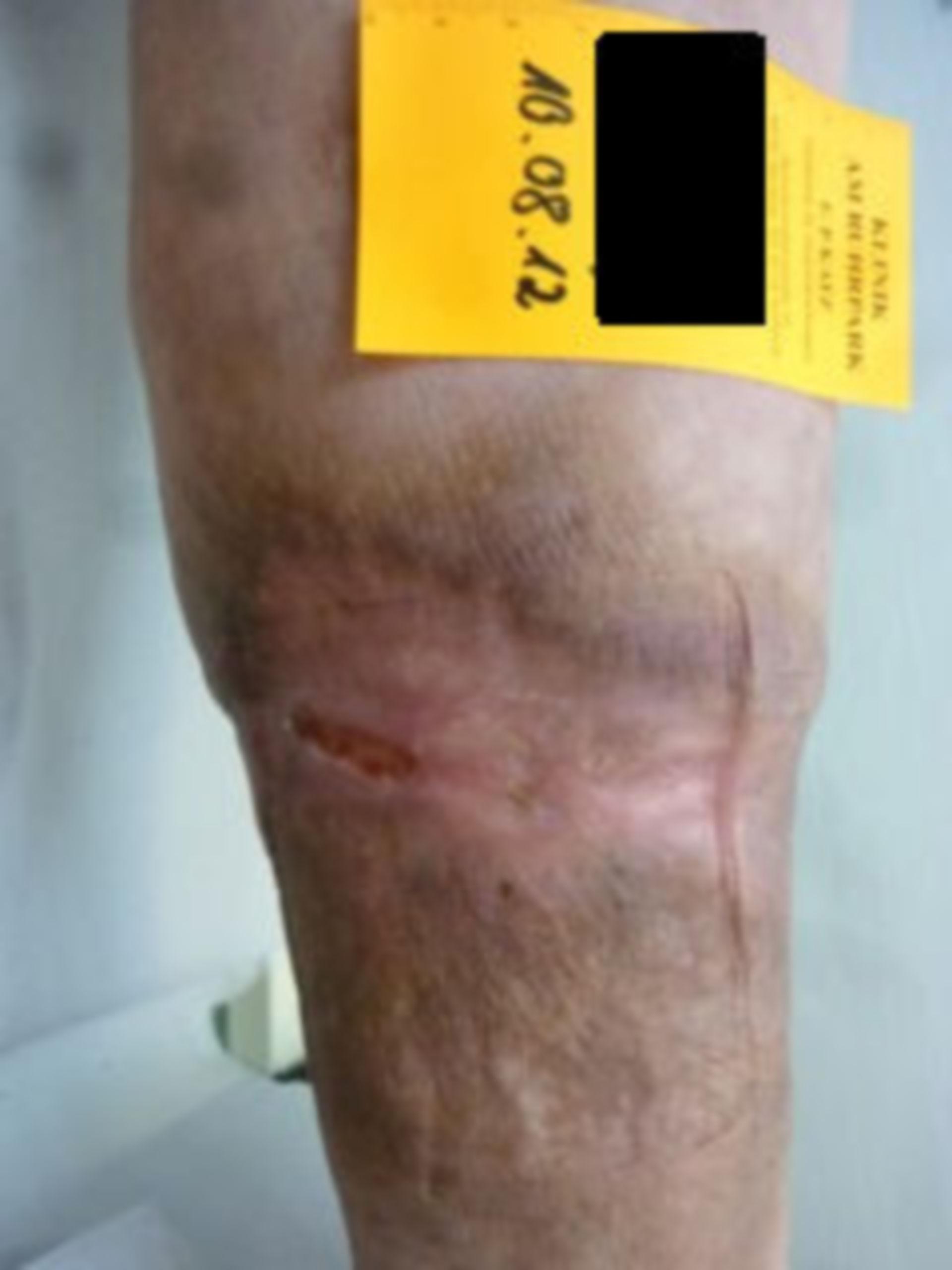 Úlcera de la pierna, abierta por 7 años (33) - resultado en agosto de 2012