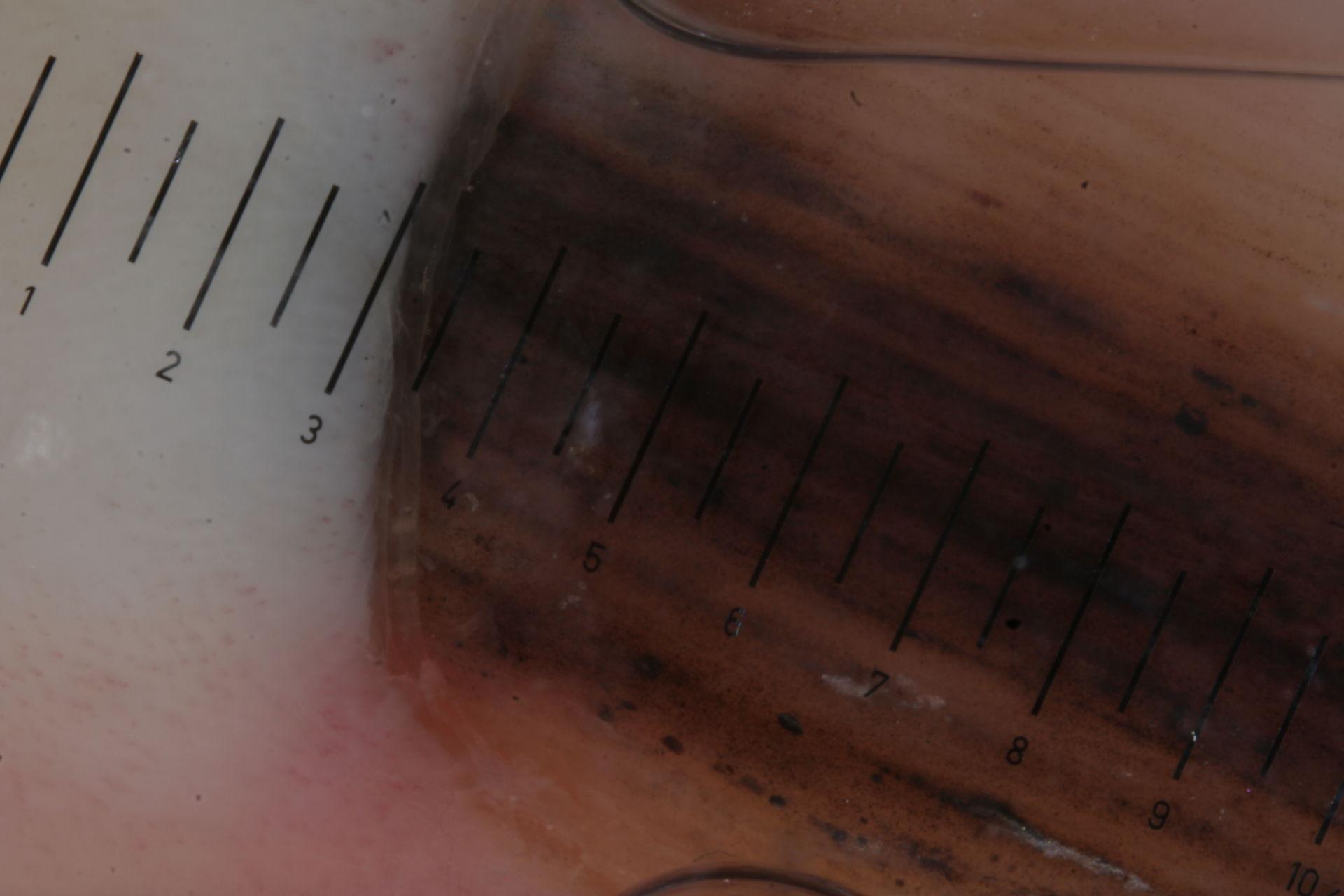 Subunguales Melanom- Dermatoskopie