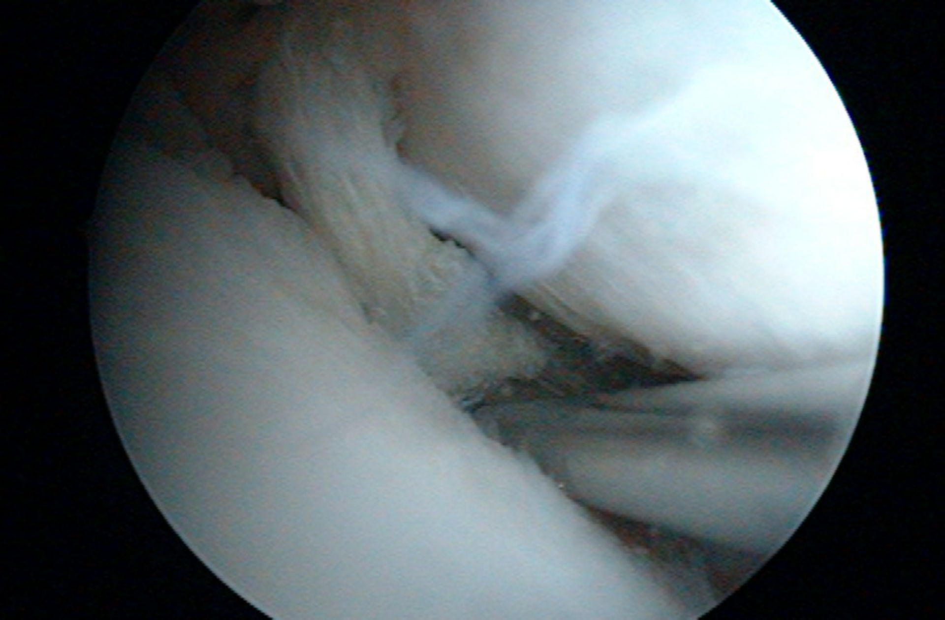 Rupture of the Medial Meniscus