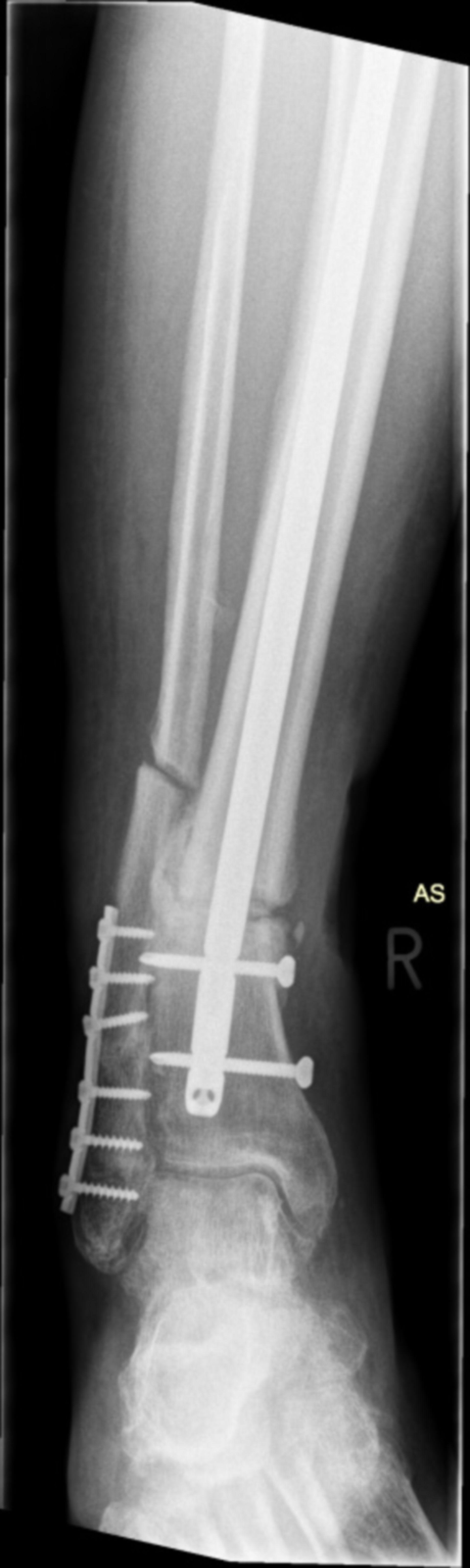 us_ap_31.08.15: Röntgen des Sprunggelenkes rechts