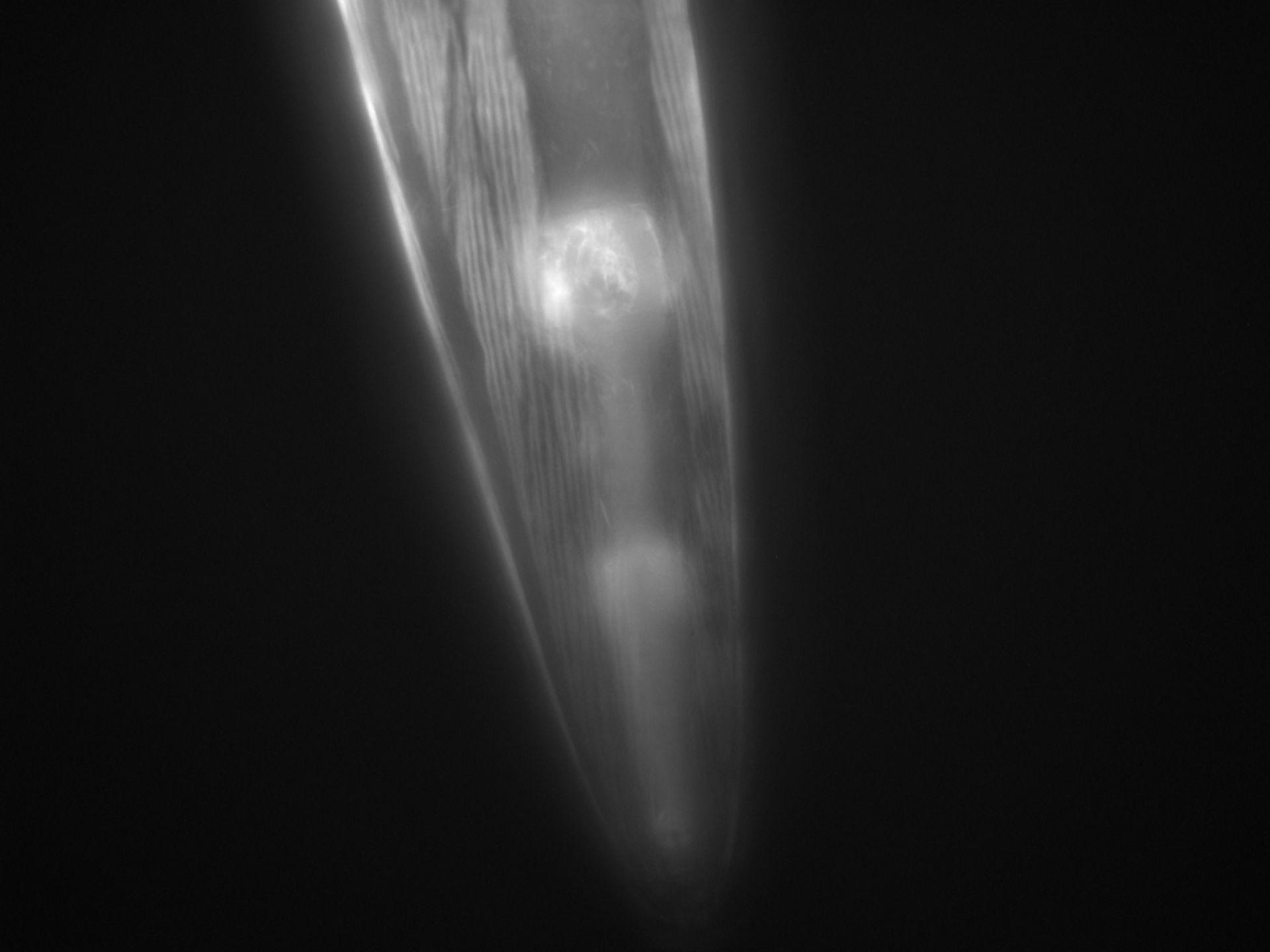 Caenorhabditis elegans (Actin filament) - CIL:1268