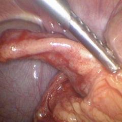 appendizitis druckpunkte