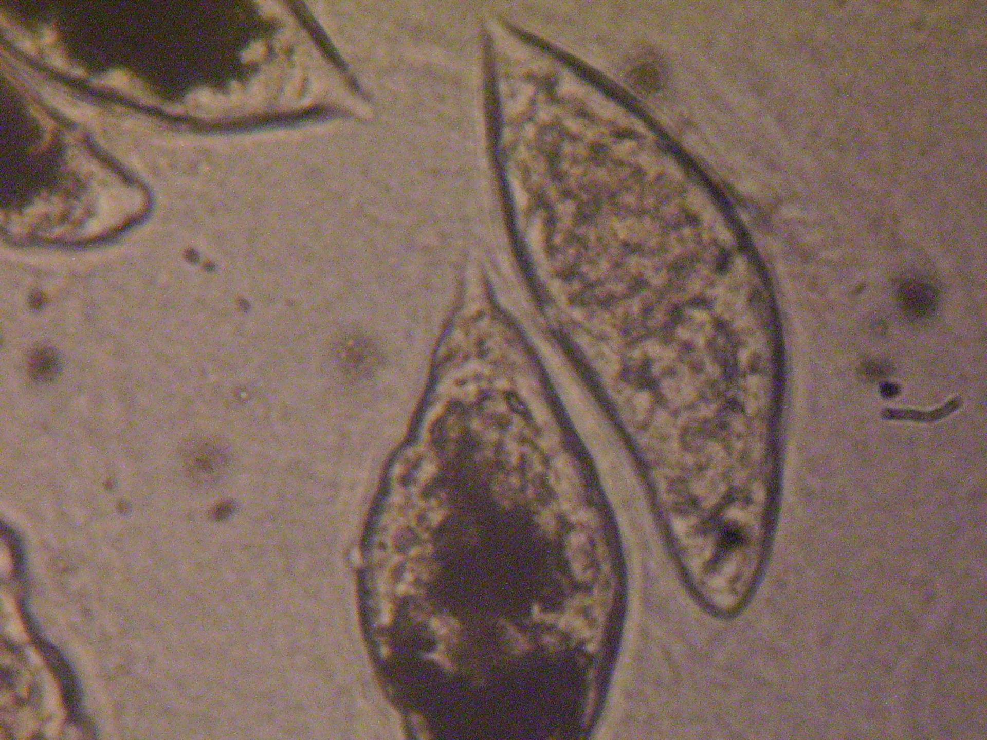 Schistosoma haematobium a