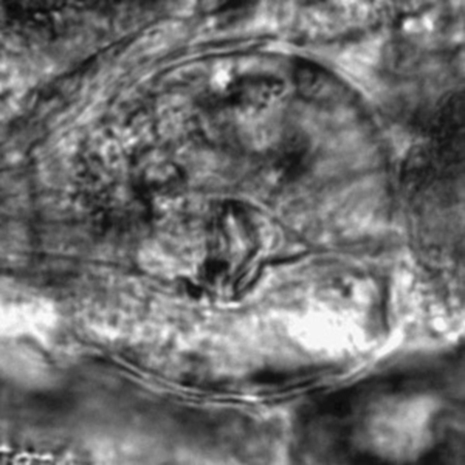 Caenorhabditis elegans - CIL:2743